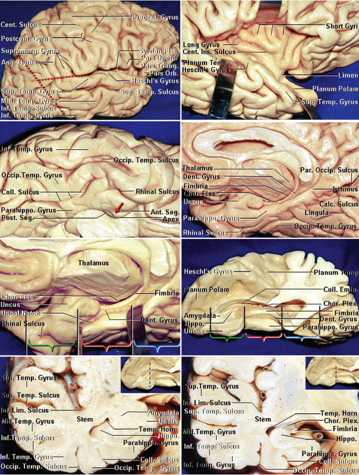 Figure 3: The surface cortical anatomy is reviewed. The fusiform or occipitotemporal gyrus is separated laterally from the inferior temporal gyrus by the occipitotemporal sulcus at the basal temporal lobe surface, while medially it is separated from the parahippocampal gyrus by the collateral posteriorly and the rhinal sulci anteriorly. The borders of the anterior, middle, and posterior medial temporal lobe are marked by brackets. The anterior portion of the lobe consists of the uncus (green bracket). The middle portion ends at the level of the quadrigeminal plate (red bracket), while the posterior segment ends at the calcarine point (blue bracket). Note the coronal anatomy of the medial temporal lobe (lower rows)(images courtesy of AL Rhoton, Jr).