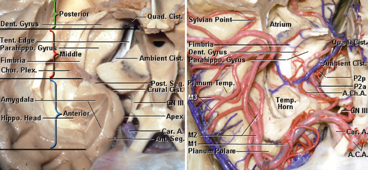 Figure 4: The anatomy of the temporal horn from a superior perspective is shown. Note the demarcation of the medial temporal lobe from this perspective into the anterior, middle, and posterior compartments (left image). The vascular anatomy from a similar perspective is also shown (right image). Note the location of the anterior choroidal artery (AChA) and its entrance into the ventricle via the inferior choroidal point.