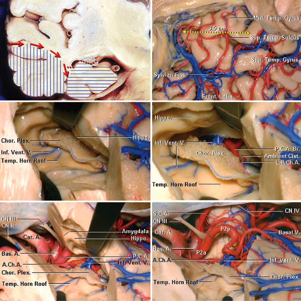 Figure 5: The steps involved in performance of a right-sided anteromedial temporal neocortical resection and amygdalohippocampectomy are shown. Note the coronal presentation of the neocortical white matter dissection (red arrows) beginning from the superior or middle temporal gyri toward the collateral sulcus. Neocortical resection (vertical blue lines) usually spares the superior temporal gyrus. Resection of the amygdala, uncus, hippocampus, and parahippocampal gyrus is performed as part of the second phase of the operation (horizontal blue lines). The neocortex spanning 3.5 cm from the temporal tip involving the inferior and middle temporal gyri are removed (right upper image). The temporal horn has been uncapped to expose the choroid plexus and hippocampus (middle left image). The choroidal fissure has been opened, and the structures within the ambient cistern have been exposed by separating the choroid plexus from the fimbria of the fornix (right middle image). The choroid plexus should remain attached to the thalamus. The vascular anatomy of the medial temporal lobe along the basal temporal lobe and ventricular surface is demonstrated (lower row). The posterior cerebral artery (PCA) is the main arterial feeder to the medial temporal lobe. The PCA gives rise to the anterior inferior temporal artery, from which the anterior parahippocampal artery arises. The anterior choroidal artery enters the temporal horn at the inferior choroidal point that is found at the posterosuperior edge of the uncus. A line connecting the inferior choroidal point to the middle cerebral artery bifurcation approximates the border between the amygdala and striatum and is a reasonable operative landmark.