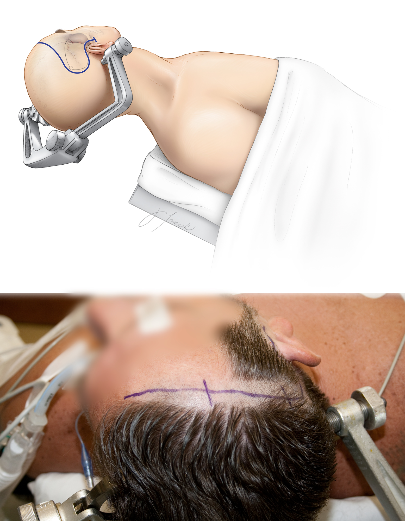 Figure 6: The patient is positioned supine with the head turned 50 degrees contralaterally and stabilized via a skull clamp. A shoulder roll may be used to assist with lateral head rotation. The single pin is placed over the mastoid area to keep the arms of the skull clamp out of the operator's working zone.