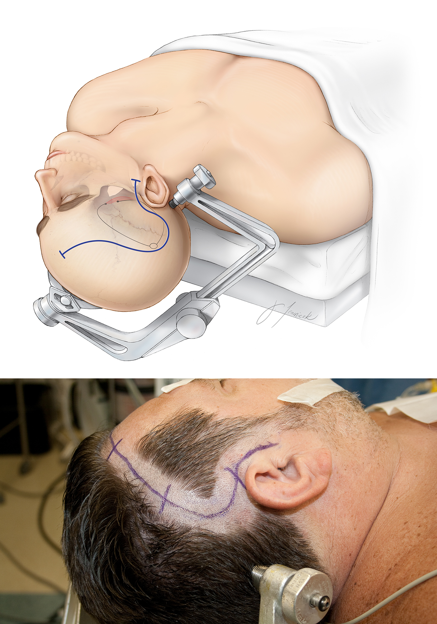 Figure 7: The patient's head is markedly extended toward the ipsilateral shoulder to flatten the long axis of the hippocampus. This head position is imperative because it provides the surgeon direct visualization through the temporal horn and along the axis of the hippocampus during intraventricular dissection and medial hippocampal disconnection. A reverse question mark incision is used for exposure (shown in blue). The incision begins near the zygoma and extends posteriorly behind the ear just in front of the mastoid vertex line, then curves anteriorly just above the insertion line of the temporalis muscle (superior temporal line). I mobilize the temporalis muscle flap to identify the root of zygoma. It is important to remember that this craniotomy aims to predominantly expose the temporal lobe and not the frontal lobe. The outline of the craniotomy is marked.