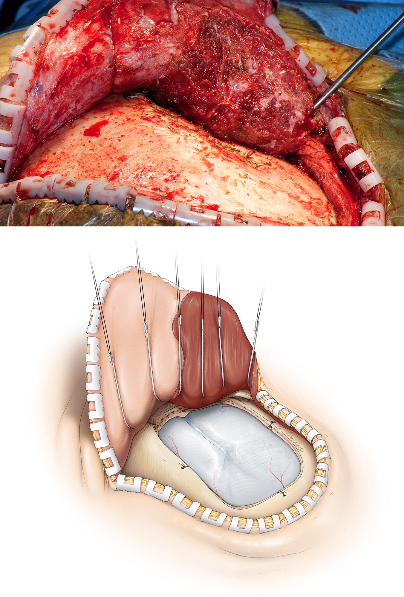 Figure 8: A myocutaneous flap is elevated and a single burr hole is placed at the root of the zygoma or just below the superior temporal line at the posterior aspect of the exposure. A Penfield #3 dissecting instrument mobilizes the dura. A craniotomy is performed as illustrated. An anterior temporal craniectomy exposes the most anterior and inferior aspects of the temporal fossa so that I can direct my microscope's view relatively parallel to the axis of the hippocampus during the later stages of dissection. A curvilinear dural incision affords reflection of the dural flap anteriorly so that the temporal tip is nearly reachable.