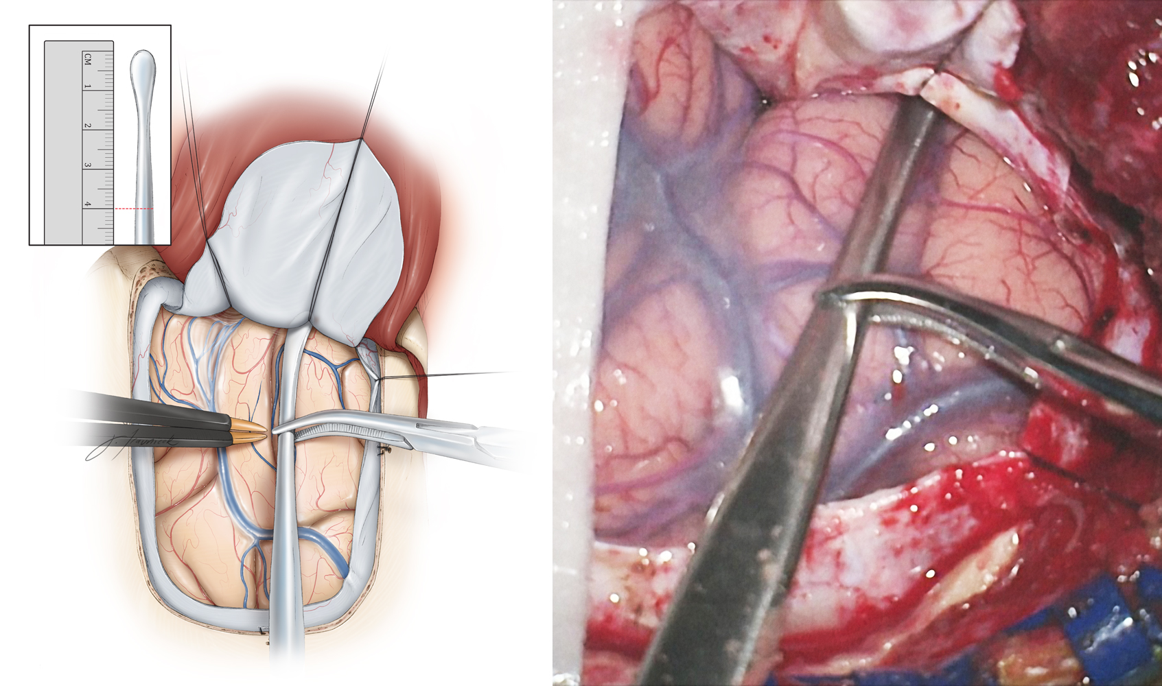 Figure 9: I use a #1 Penfield dissecting instrument to determine the extent of the lobectomy measured from the temporal tip. I mark the 4.0-cm line on the instrument (inset image) and then slide the instrument over the middle temporal gyrus until the tip of the instrument touches the anterior temporal fossa just below the sphenoid wing. The extent of the lobectomy from the temporal tip is marked on the cortex with an attempt to preserve the middle temporal veins located anterior to the vein of Labbe. The extent of neocortical resection is approximately 4 cm and 3.5 cm for the nondominant and dominant temporal lobes, respectively.