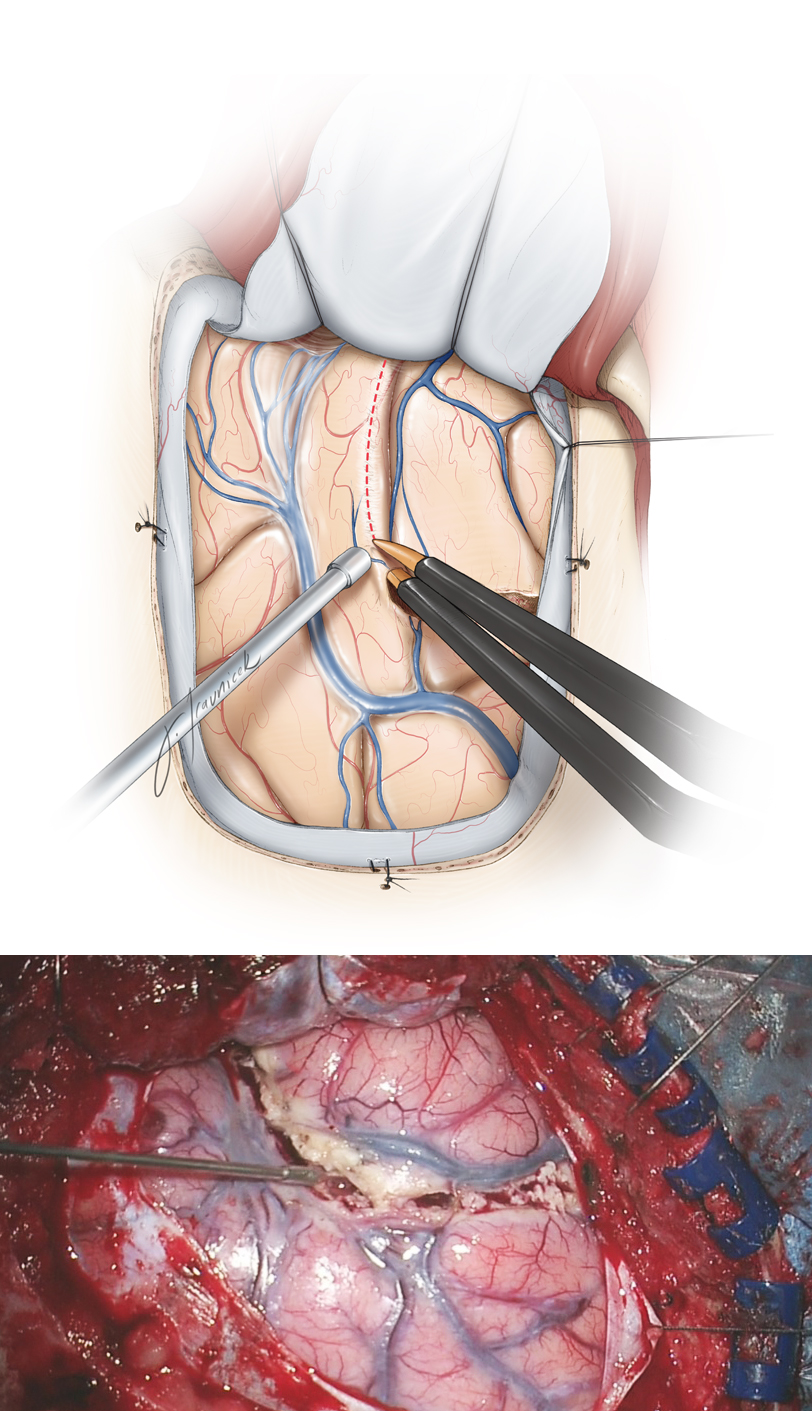 Figure 10: The superior corticotomy is carried out along the superior temporal sulcus. Preservation of the superior temporal gyrus, which may contain language function in the dominant temporal lobe, is advised. Next, the posterior corticotomy is performed perpendicular to the long axis of the middle and inferior temporal gyri, 3.5 to 4 cm from the temporal pole. The depth of resection is about 2 to 3 cm and includes the fusiform gyrus. As the operator gains additional experience, the fusiform gyrus resection may be extended more medially to the level of the ventricle, simplifying exposure of the temporal horn and mobilization of the mesial structures. Intraoperative navigation can guide this step of the operation.