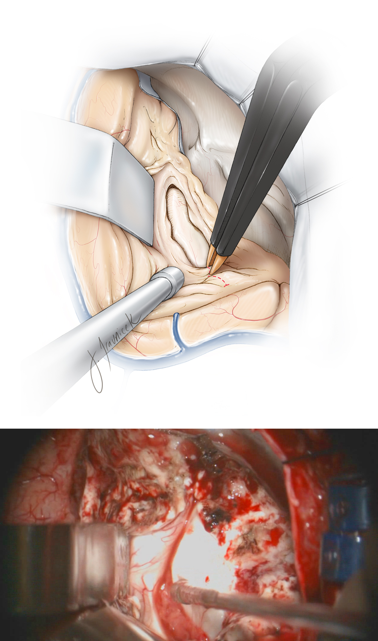 Figure 13: Exposure of the hippocampus is expanded by disconnection of the occipitotemporal fasciculus on the lateral wall of the ventricle. This dissection is parallel to the lateral edge of the hippocampus. Moreover, the fusiform gyrus is incised along the occipitotemporal fasciculus until the arachnoid of the mesial occipitotemporal gyrus is identified. The choroid plexus is apparent at the tip of the suction device (lower intraoperative photo).