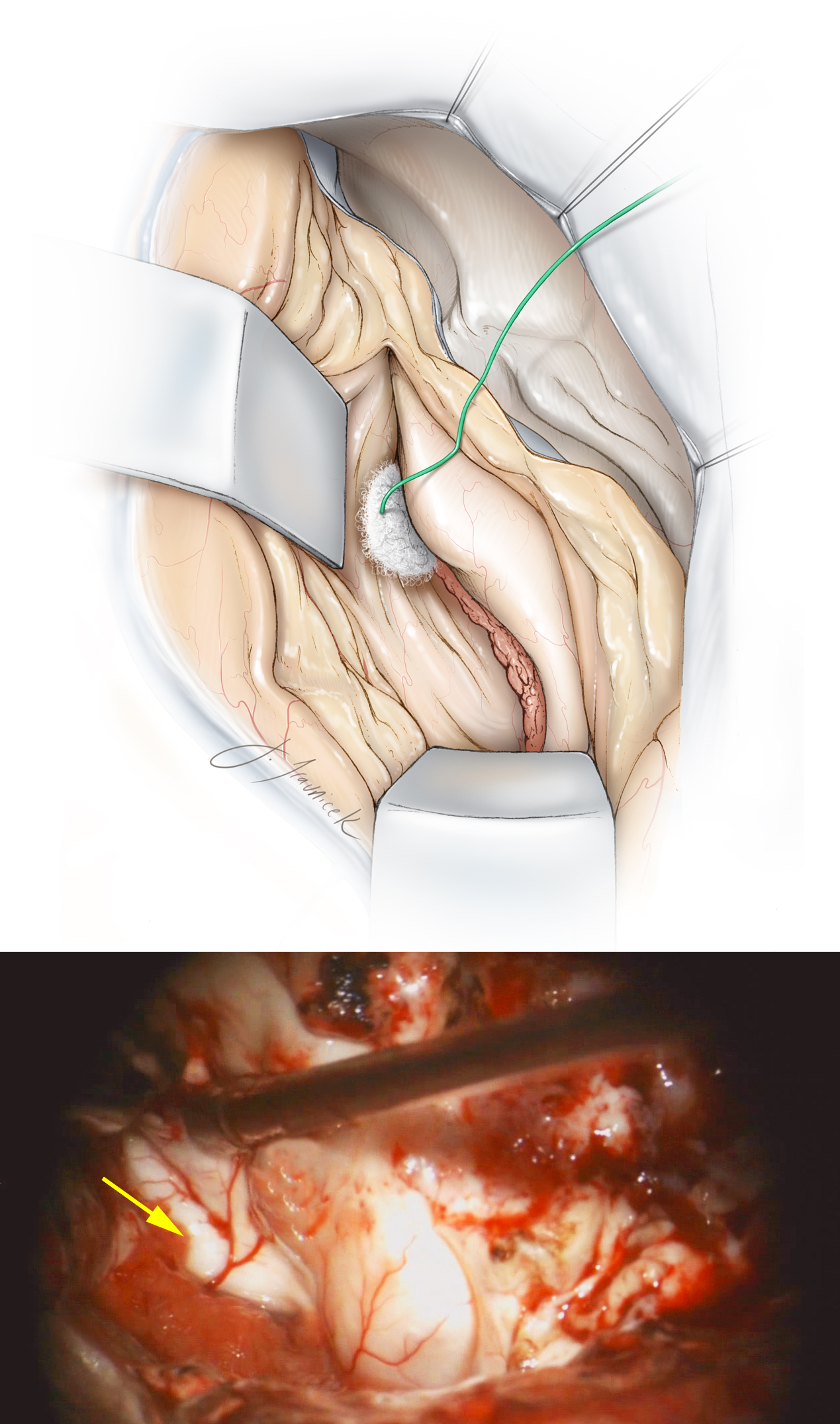 Figure 15: My colleagues prefer to use two fixed retractor blades, one to support the superior temporal gyrus, and the second on the cut surface of the posterior plane of resection. One retractor elevates the roof of the temporal horn and allows identification of the choroid plexus and hippocampal structures. The second retractor blade mobilizes the remainder of the temporal neocortex laterally. A small cottonoid pledget is placed into the temporal horn and at the anterior edge of the choroid plexus so that the inferior choroidal point is easily identified. Another pledget is placed at the tail of the temporal horn to prevent blood from entering the rest of the ventricular system. The yellow arrow identifies the uncinate fasciculus and the intralimbic lobe of the parahippocampus just underneath the choroid plexus.