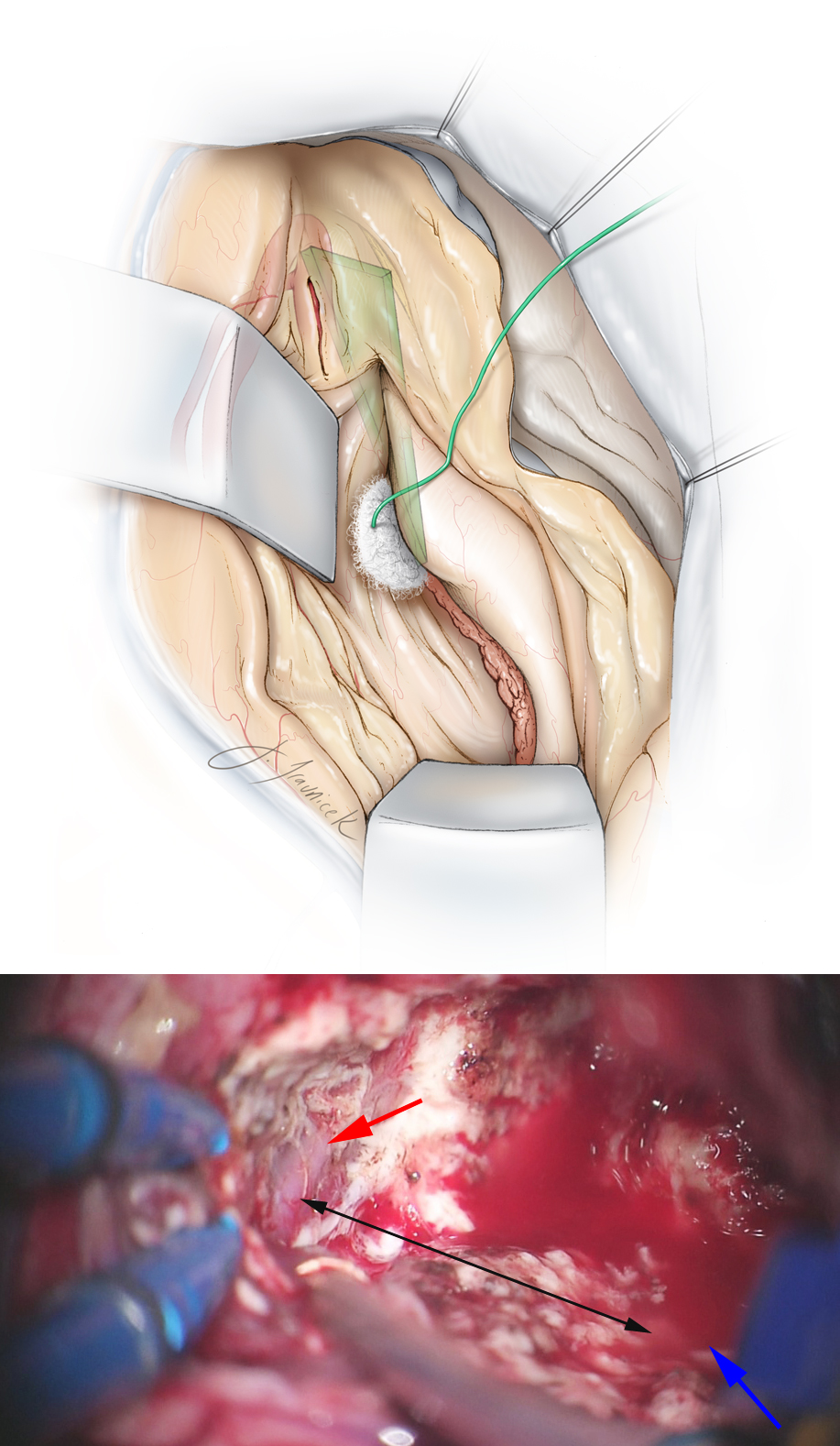 Figure 16: A small portion of the medial middle temporal gyrus overlying the middle cerebral artery (MCA) is subpially removed to expose the MCA bifurcation or the distal M1 segment that remains covered by its encasing Sylvian fissure arachnoid layers. A line from the MCA to the inferior choroidal point (where the anterior choroidal artery enters the temporal horn) defines the border (green plane) between the amygdala and the pallidum. It is important to maintain this dorsal dissection plane during the amygdalectomy to avoid injuring the globus pallidus (top illustration). The bottom intraoperative photo shows the M1 through it arachnoid band (red arrow) and the inferior choroidal point (blue arrow). The connecting black line marks the upper border of amygdalar removal.