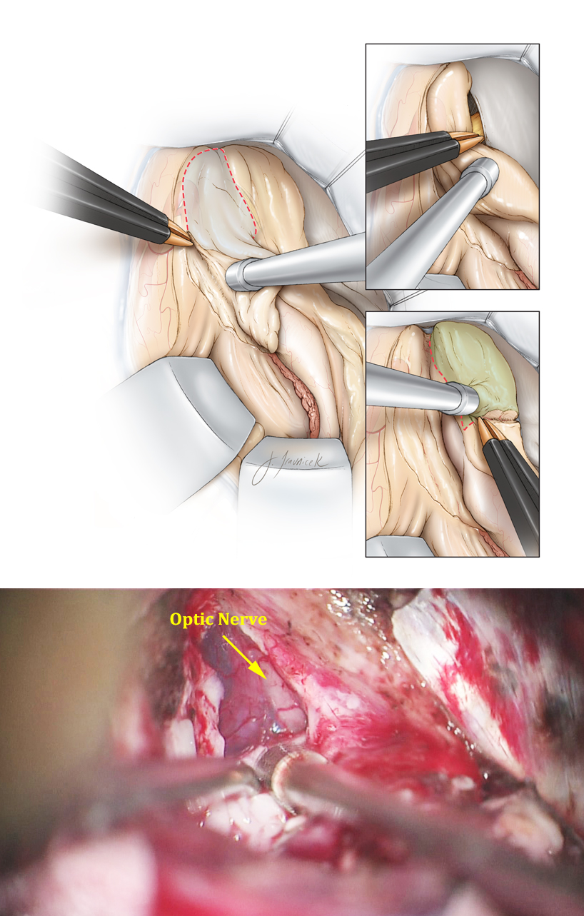 Figure 18: An en bloc amygdalectomy is feasible while maintaining the ventral plane of dissection limited to the arachnoid layers covering the basal cisterns. I maintain the integrity of these arachnoid layers during the entire process of medial dissection to protect the underlying oculomotor nerve, PCA, and brainstem. Identification of the oculomotor nerve and the free edge of the tentorium through their corresponding arachnoid membranes confirms adequate medial removal of the uncus (upper inset image). The posterior limit of the dissection is where the uncus joins the head of the hippocampus (lower inset image). I use a flat dissector to peel the remaining thin layer of the uncus off of the overlying arachnoid of the optic nerve (intraoperative photo).