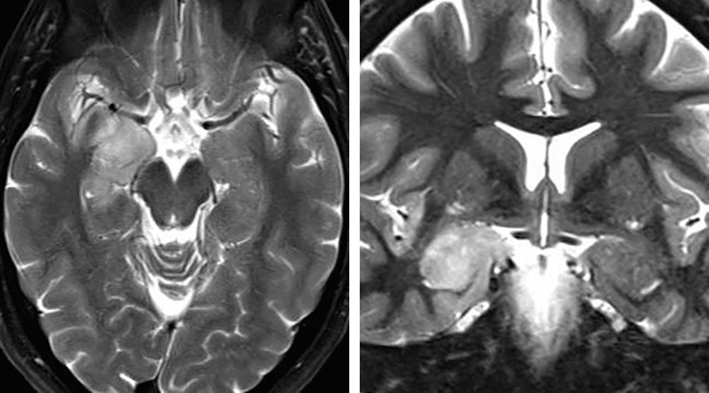 Figure 1:  I prefer to use SA for tumors located within the amygdala, uncus, and anterior hippocampus, especially in the dominant hemisphere. I do not believe SA affords significant advantages over the standard anteromedial temporal lobectomy and amygdalohippocampectomy for medial temporal lobe sclerosis.