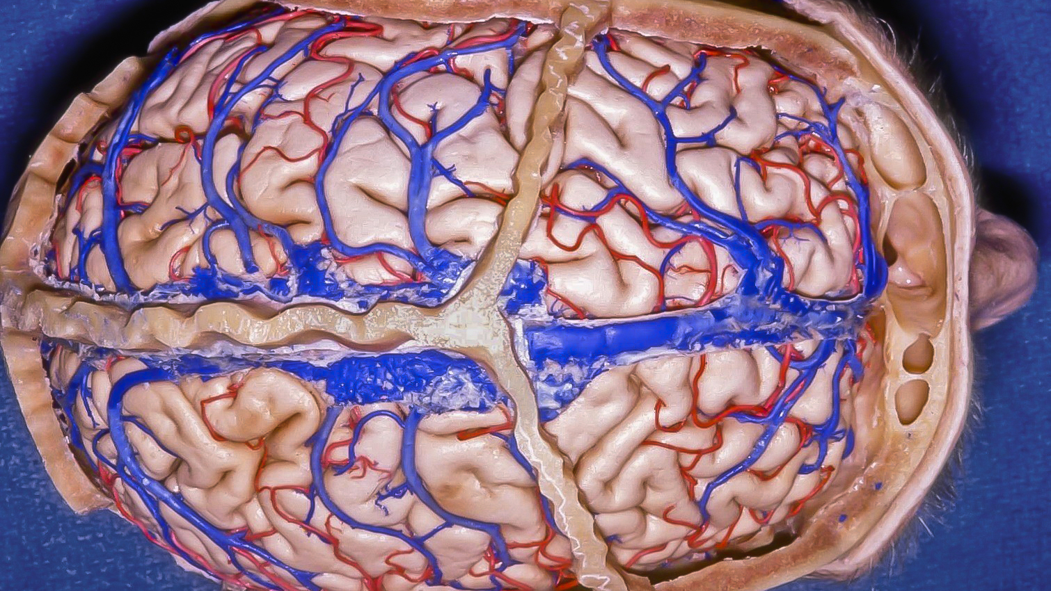 Figure 1: The location of the coronal sutures in relation to the underlying frontal lobe is demonstrated. The parasagittal veins anterior to this suture are relatively dispensable. The extent of lobectomy should not reach posterior to the coronal suture as  the motor cortex is about 3cm behind the suture  (image courtesy of AL Rhoton, Jr).