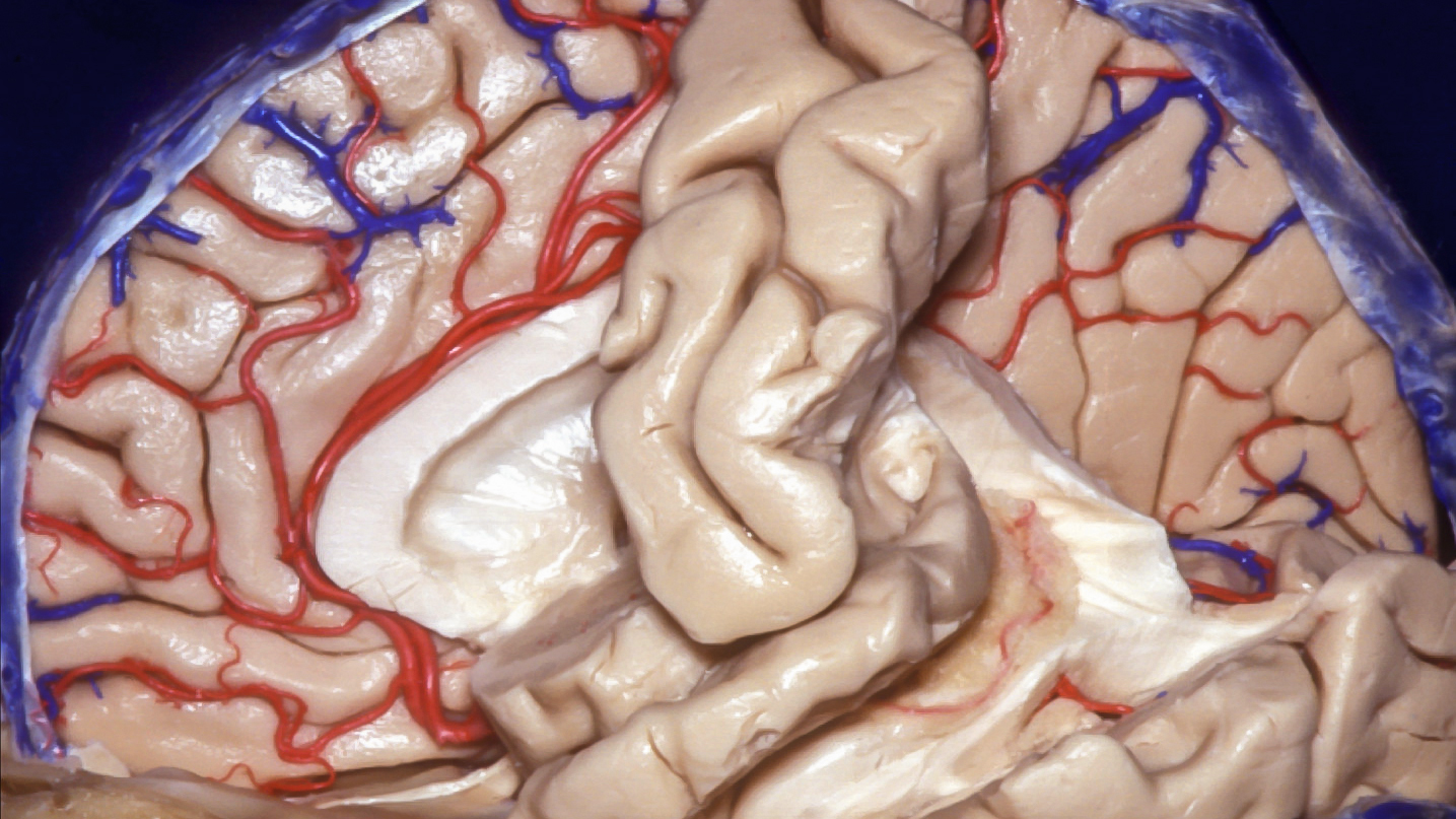 Figure 2: The callosomarginal and pericallosal arteries are protected during the medial/interhemispheric transection of the lobe. The subpial resection technique protects these important arteries.