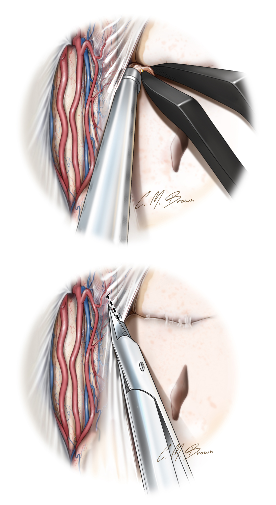 Figure 9: The subpial removal of the brain tissue is demonstrated. This important technique is frequently utilized in epilepsy surgery to protect the epipial  en passage  arteries. The pia is incised to the level of the cingulum (top) and the bipolar forceps are used to fragment the gyrus after which the suction device evacuates the fragmented tissue subpially. This maneuver completes the medial transection for the lobectomy.