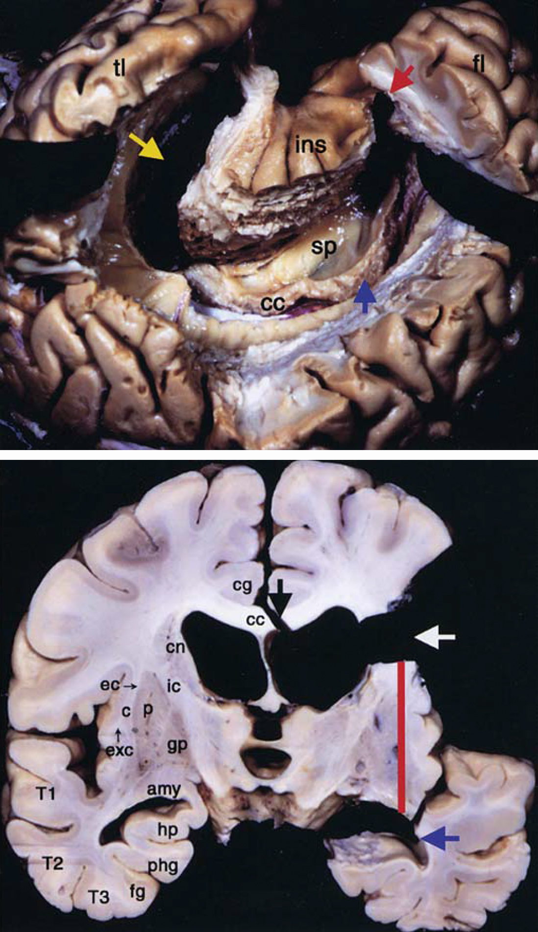 Figure 2: A lateral overview of a C-shaped peri-insular hemispherotomy in shown (top image). The entire lateral ventricle is unroofed. The yellow arrow points at the resection of the medial temporal structures; the blue arrow indicates the transventricular corpus callosotomy; and the red arrow marks the disruption of the horizontal frontal fibers. A coronal view of a hemispherotomy is also included (bottom photo). The white arrow shows the area corresponding to the interruption of the internal capsule from the operculum, whereas the black arrow indicates the transventricular corpus callosotomy. The red line indicates the insulectomy, and the blue arrow indicates the interruption of the temporal stem and resection of the medial temporal structures. c = claustrum; cc = corpus callosum; cg = cingulate gyrus; cn = caudate nucleus; ec = external capsule; fg = fusiform gyrus; phg = parahippocampal gyrus; T1 = superior temporal gyrus; T2 = middle temporal gyrus; T3 = inferior temporal gyrus (images used with permission from Morino et al. Anatomical analysis of different hemispherotomy procedures based on dissection of cadaveric brains.  J Neurosurg . 2002;97:423-431).