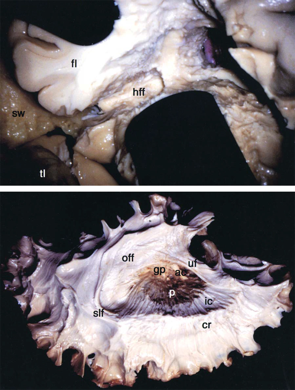 Figure 4: The horizontal frontal fibers (hff) are transected via continuation of the subcortical dissection starting from the point where the genu callosotomy left off and following the outline of the sphenoid wing (top photo). The fiber dissection method demonstrates that the horizontal frontal fibers include the occipitofrontal fasciculus (off) and uncinate fasciculus (uf)(bottom photo). ac = anterior commissure; cr = corona radiata; gp = globus pallidus; p = putamen; sw = sphenoid wing (images used with permission from Morino et al. Anatomical analysis of different hemispherotomy procedures based on dissection of cadaveric brains.  J Neurosurg . 2002;97: 423-431.)