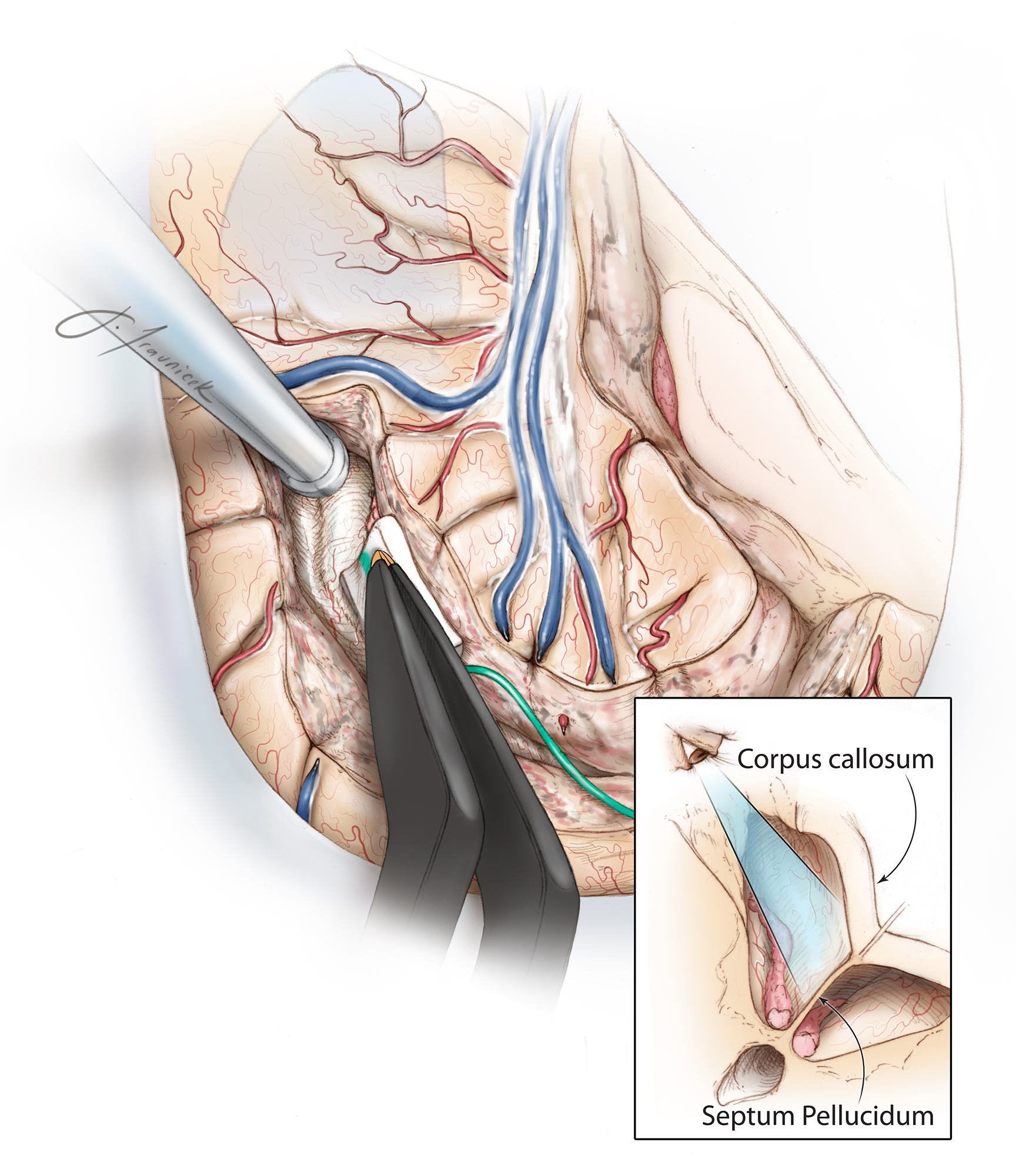 Figure 8: Next, the corticotomy is carried anteriorly with removal of portions of the postcentral, precentral, and inferior frontal gyri, thus exposing the body and frontal horn of the lateral ventricle. Note the viewing angle toward the junction of the septum pellucidum and corpus callosum (inset image). This angle is oblique and may be disorienting to the operator. Image guidance can assist with identification of the appropriate trajectory. Any injury to the contralateral hemisphere should obviously be avoided.