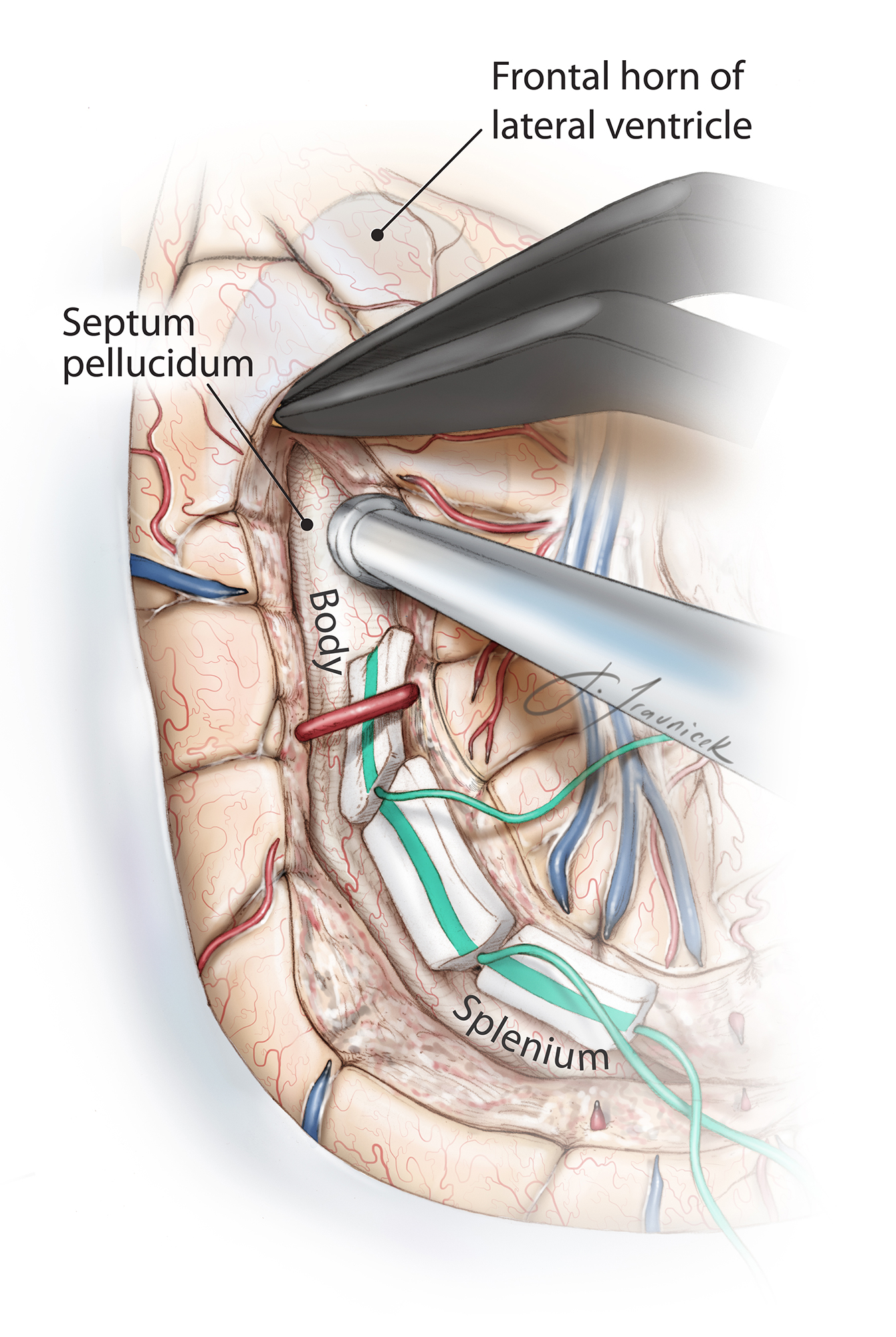 Figure 9: The corticotomy is continued anteriorly along the lateral wall of the frontal horn. Note the use of cottonoid patties to protect the center of the hemisphere bounded by the choroid plexus. Again, the larger bridging branches of the middle cerebral artery are preserved. This maneuver is imperative because sacrifice of these branches will lead to infarction of large territories and compromises the advantages of hemispherotomy in preserving disconnected blocks of brain.