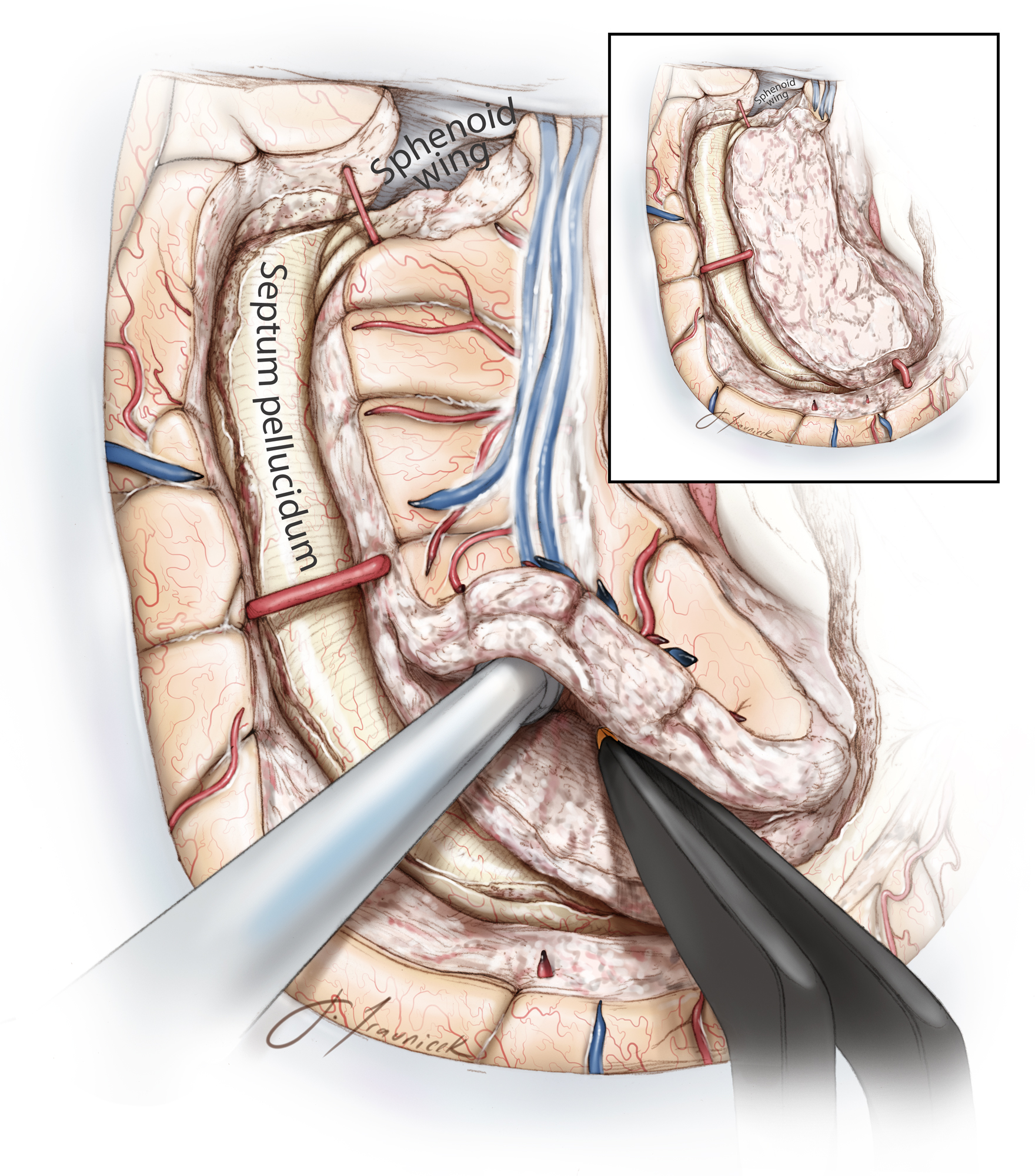 Figure 17: Finally, the insular cortex is removed while the middle cerebral artery branches are protected.
