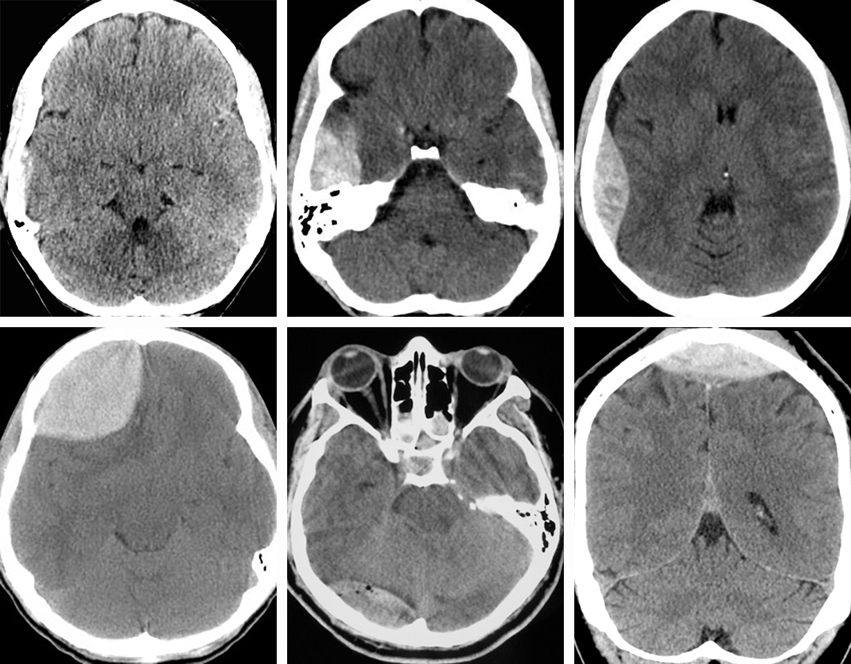 Figure 3: An epidural hematoma can occur in multiple locations. Upper row: Note the rapid expansion of a classic right temporal epidural hematoma within a two-hour interval. Lower row: Classic right frontal EDH (leftimage), right posterior fossa venous EDH (middle image), and a vertex venous EDH (right image). Acute bleeding is an ominous sign and is less hyperdense (swirl sign).