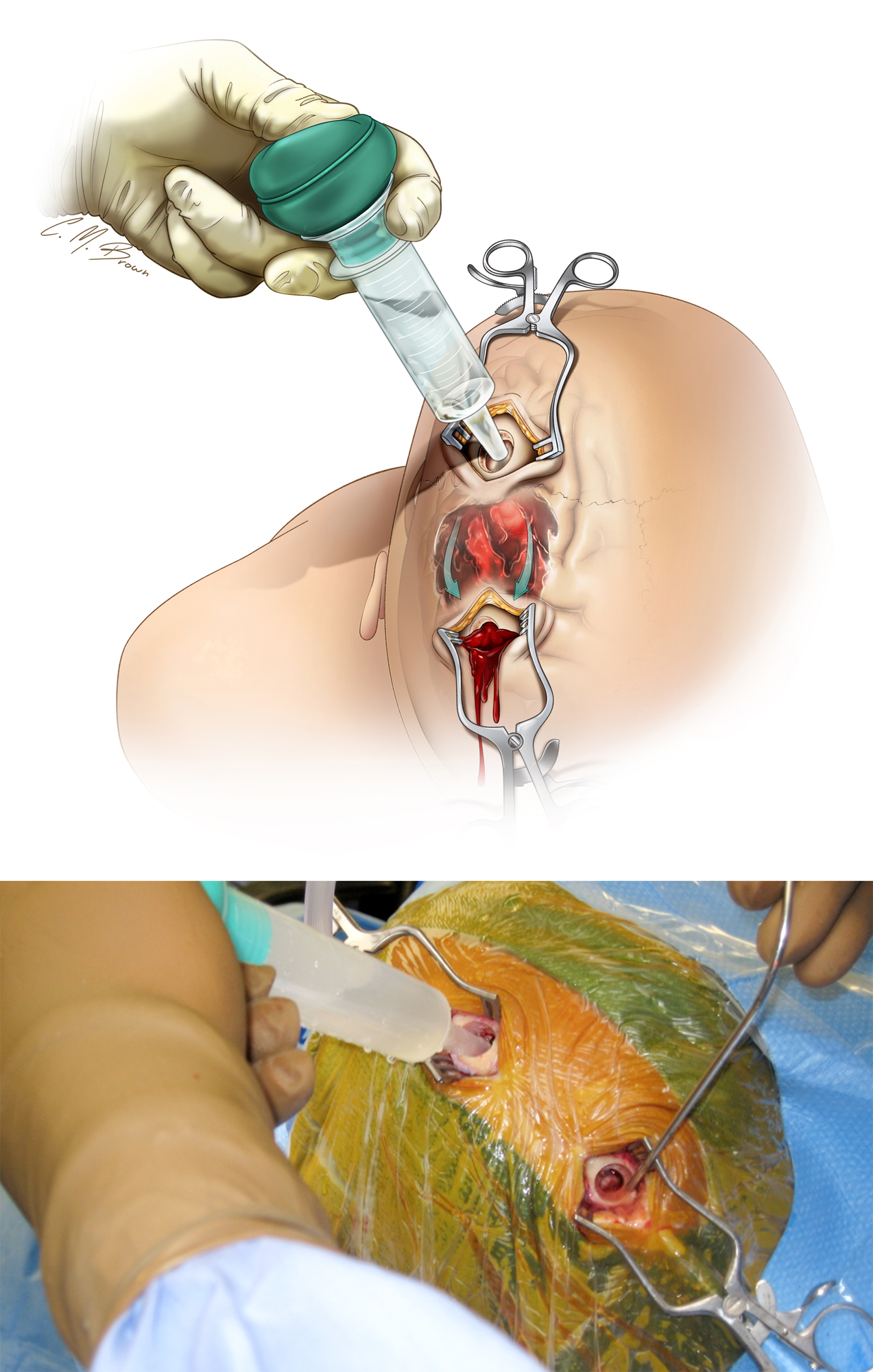 Figure 5: The above illustration and intraoperative photo demonstrate evacuation of a subacute subdural hematoma through the two-burr-hole technique using an ample amount of irrigation. The bulb irrigator is used through the anterior burr hole to displace the more solid components of the clot into the posterior burr hole. The top illustration demonstrates the movement of the hematoma subdurally, while the bottom image shows the surgeon's perspective. I inspect the surface of the brain through the burr holes and carefully attempt to fenestrate the easily reachable septations to allow free flow of the irrigant between the anterior and posterior burr holes. If the surface of the brain is not visible, the septations should be further fenestrated through the limited exposure if this maneuver is deemed safe. The movement of the brain toward the calvarium is a good prognostic factor, another confirmation that the hematoma has been adequately evacuated.