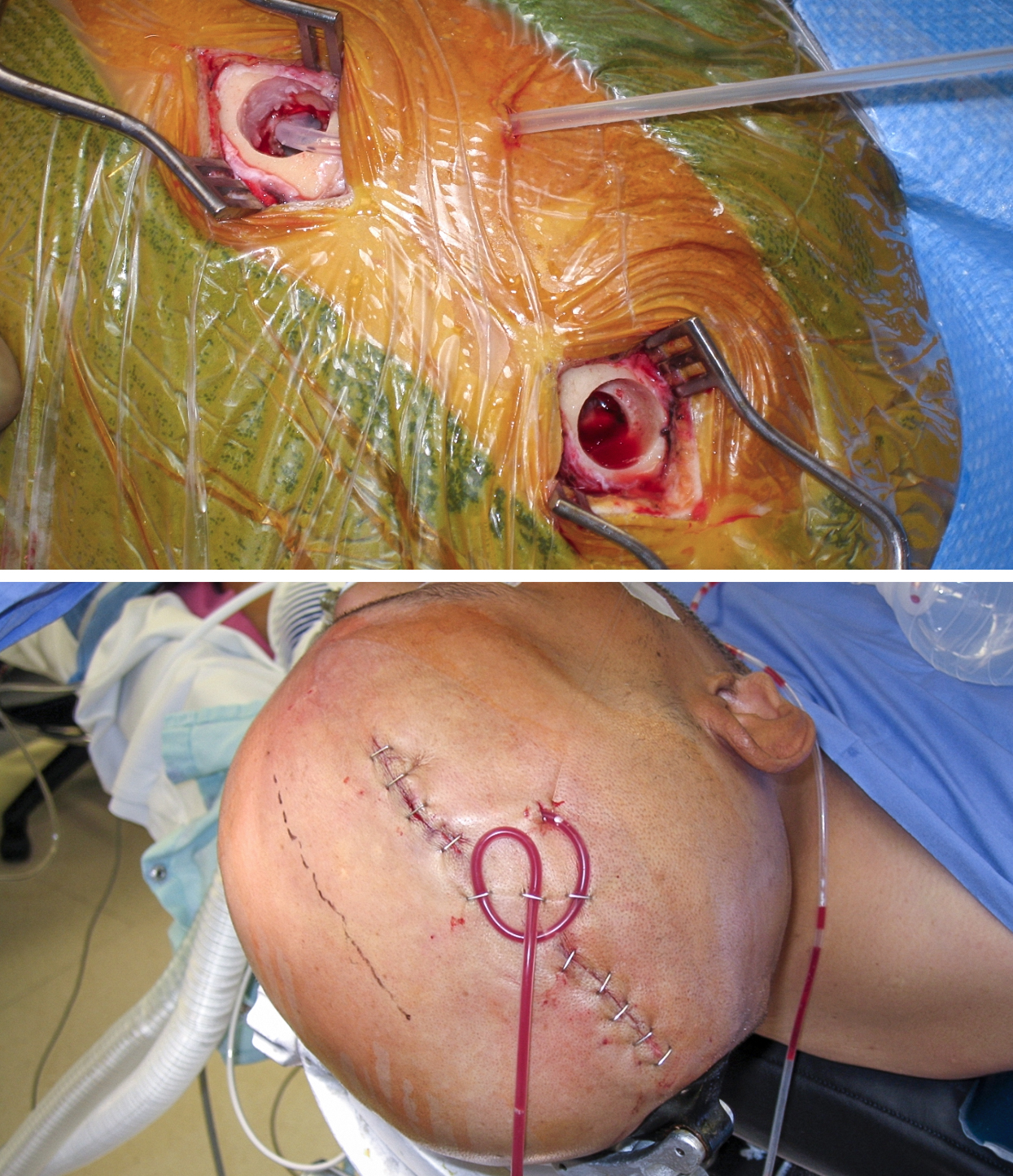 Figure 6: Placement of a drain through the anterior burr hole and its fixation to the scalp is shown. The upper photo demonstrates how the drain is tunneled subcutaneously, while the bottom photo shows how the drain is stapled to the scalp to achieve adequate fixation.