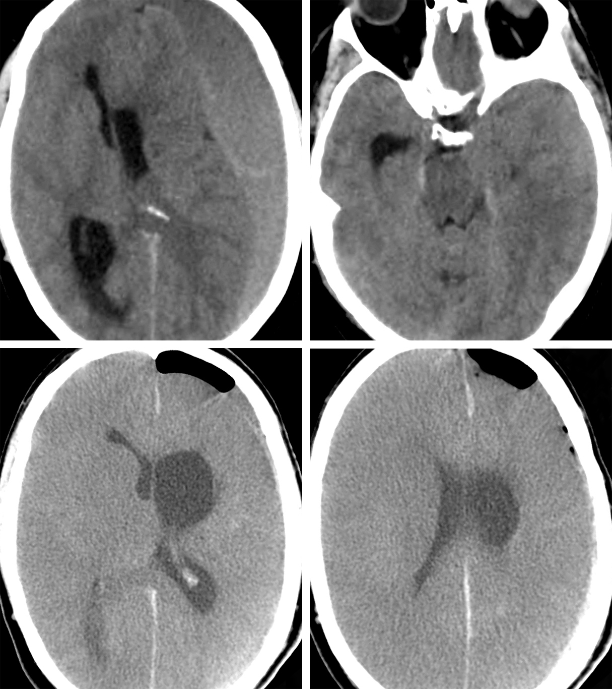 Figure 7: This unfortunate and relatively young male presented with only mild confusion (top row images-note the early sign of brain herniation-right upper image) to an outside institution. Surgery was postponed to the next day due to the patient's regular use of the aspirin and the presumed need for platelete infusion. This patient acutely deteriorated next morning and underwent emergent burr hole decompression. Despite adequate hematoma evacuation, it is apparent that preoperative cerebral herniation immediately before surgery most likely led to diffuse cerebral ischemia (bottom row images). The patient subsequently expired.