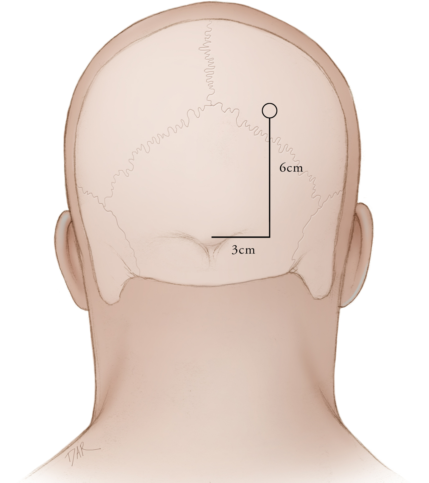 Figure 3: Frazier's point is defined as 3 cm lateral and 6 cm superior to the inion.