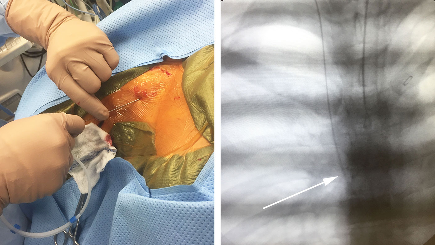 Figure 6: A J-wire with a soft distal end is advanced through the needle (left). Once confirmed that the needle passes easily, it is removed, and the wire is advanced toward the atrium (right). The wire is visible with C-arm imaging (arrow).