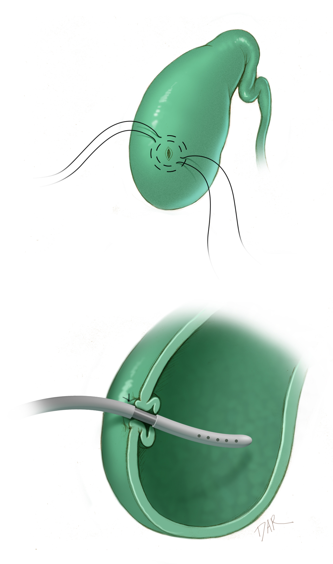 Figure 2:  Two concentric purse-string sutures are placed in the dome of the gallbladder, one inside the other. A puncture is made in the center for placement of the distal catheter. The purse-string sutures are tightened around the metallic straight connector, thus fastening the distal catheter to the gallbladder wall and inverting the wall for a secure seal.