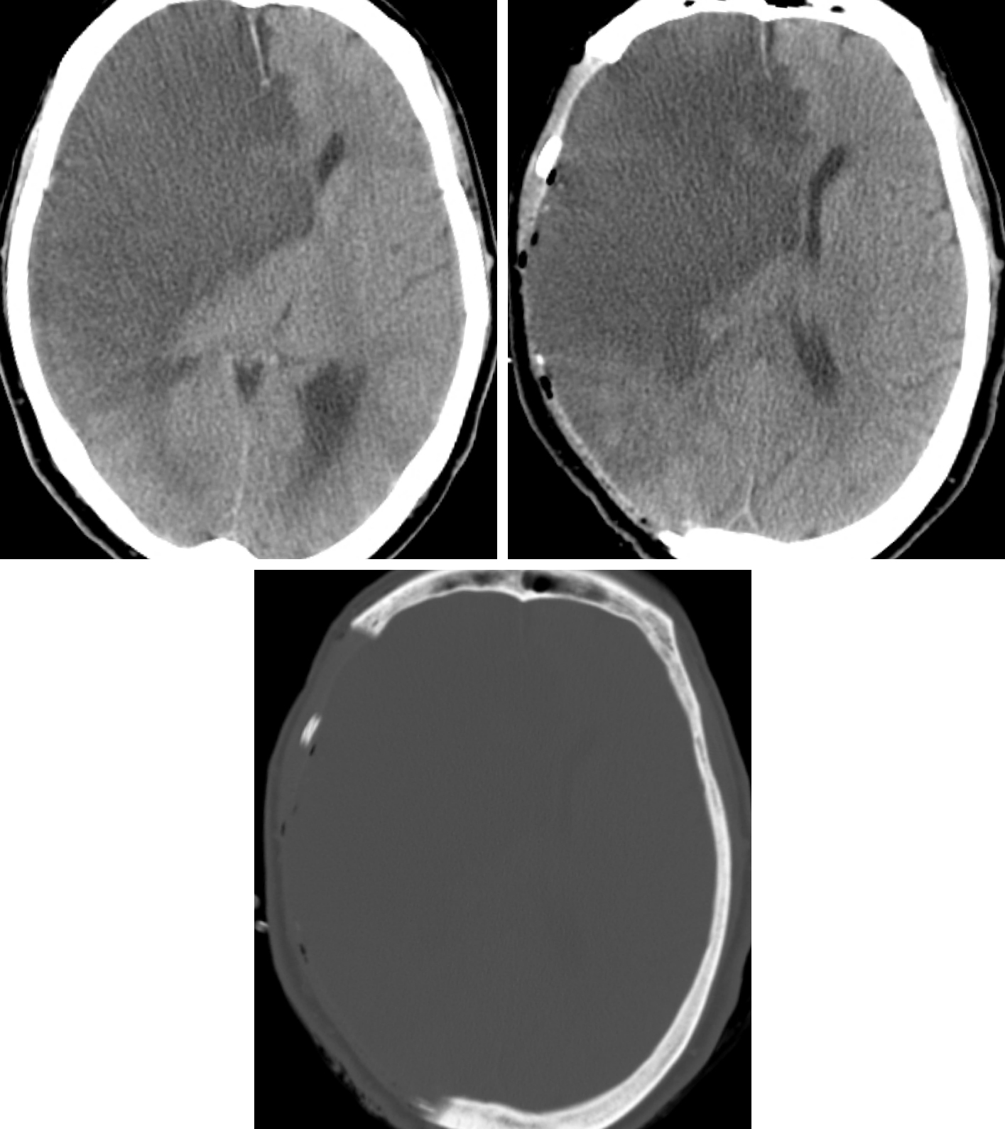 Figure 3: Preoperative (top row left) and postoperative (top row right and bottom) images show the extent of bony decompression in a patient after a middle cerebral artery stroke that affected a large part of the hemisphere.