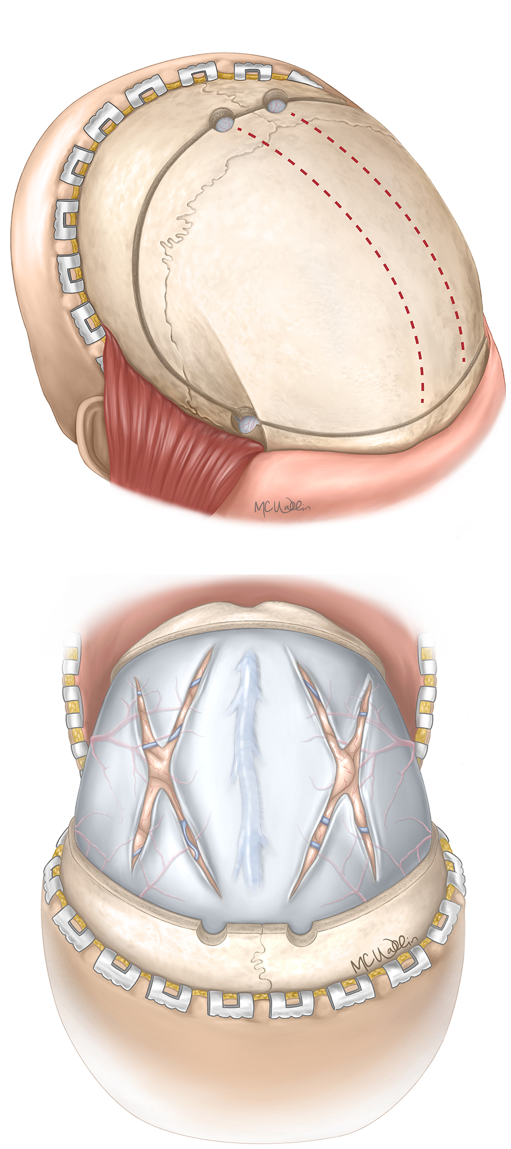 """Figure 5: The calvarium is exposed, and a parietal burr hole is placed on both sides adjacent to midline lateral enough to avoid the superior sagittal sinus and 2 fingerbreadths posterior to the coronal suture. A temporal burr hole is placed bilaterally. The biparietal and bitemporal burr holes can be connected over the superior sagittal sinus to enable complete removal of a single bone flap.  As an alternative, the bone can be cut anteriorly from the parietal burr hole and angled inferiorly near the supraorbital margin to the ipsilateral temporal burr hole (red hashed lines.) This technique will preserve a """"bucket-handle"""" bridge of bone along the sagittal sinus and permits a bifrontal craniectomy.  A high-speed drill with a footplate is used to connect the temporal and parietal burr holes, extending as far posteriorly during the cut as possible given the exposure. The anterior cut is made, and the bone flap can then be elevated.  After ligation of the anterior superior sagittal sinus, a durotomy can be performed in either bilateral cruciate or single stellate fashion. A dural substitute is then placed overlying the durotomy to permit brain relaxation among the durotomy flaps."""