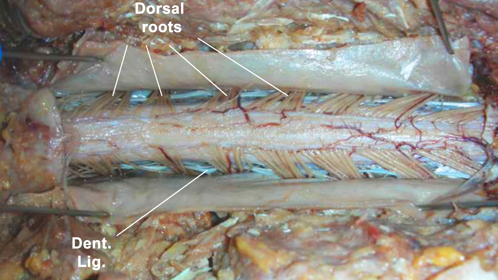 Figure 2: Photograph of a cadaveric specimen after thoracolumbar laminectomy and midline dural incision. There is a marked change in SC vascularity from the thoracic (left side of photo) to the lumbar SC (right side). The dorsal roots have an oblique trajectory toward the intervertebral foramina. Denticulate ligaments are positioned anterior to the dorsal roots and have a typical bright white appearance.