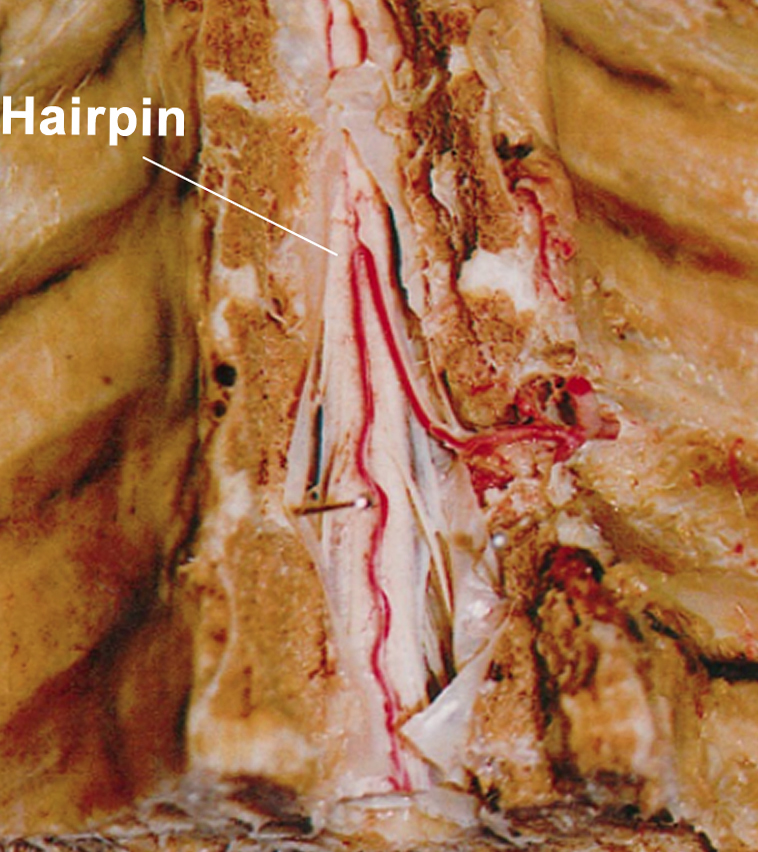 Figure 9: Photograph of a cadaveric specimen (anterior view) showing the typical configuration of the artery of Adamkiewicz. This artery enters the spinal canal on the left side, follows the ventral root, courses over the spinal cord through several segments, and makes a hairpin turn at or just before encountering the anterior spinal artery. (Adapted from Alleyne et al, 1998 with permission.)