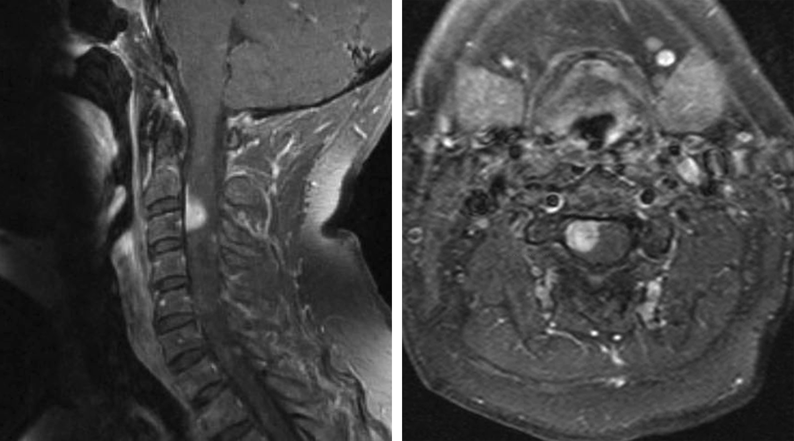 Figure 1: Typical imaging presentation of a cervical anterolateral meningioma: an intensely homogeneously enhancing dural-based tumor with a dural tail.