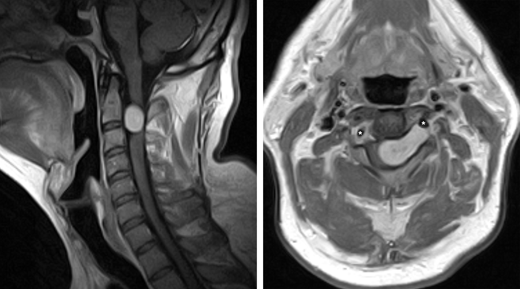 Figure 2: Typical imaging presentation of a cervical dumbbell-shaped schwannoma. Note the anterior displacement of the vertebral artery on the left side (asterisks) and the enlargement of the ipsilateral neuroforamina.