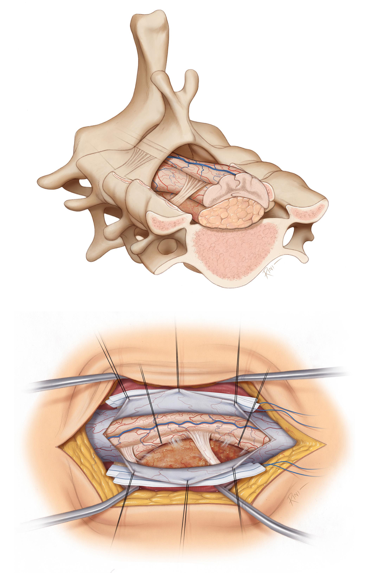 Figure 5: In particular cases and for example in the cervical spine, the approach may be extended posterolaterally incrementally by removing the facet joint, pedicle, or even the lateral mass. Densely calcified tumors are initially approached through the posterolateral route. If resection is not deemed possible because of the need for spinal cord manipulation, the patient should be scheduled for an anterior approach at a later date. Extensive facet removal may require an arthrodesis procedure for spinal stabilization. The top sketch illustrates the use of aggressive bone removal on the right side for reaching the tumor without a need for extensive cord manipulation. The bottom illustration of the operative perspective depicts the use of pial/dentate ligament retraction sutures to gently mobilize the cord and further uncover the lesion.