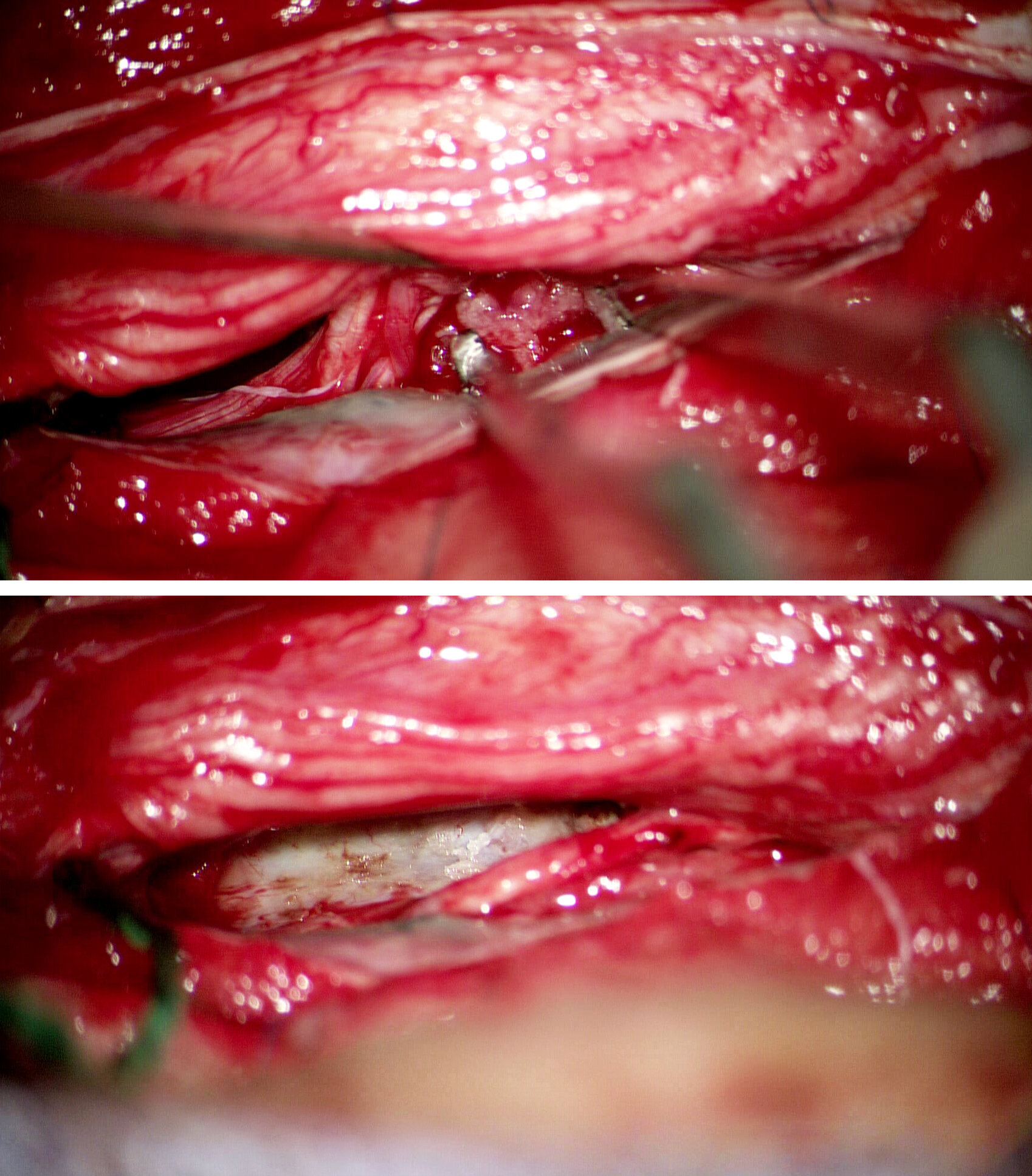 Figure 8: Internal decompression permits progressive tumor mobilization (upper image); gentle dynamic retraction on the cord is used. Anterior meningiomas can be mobilized completely only after dural detachment, which is widely coagulated after tumor removal (lower image).