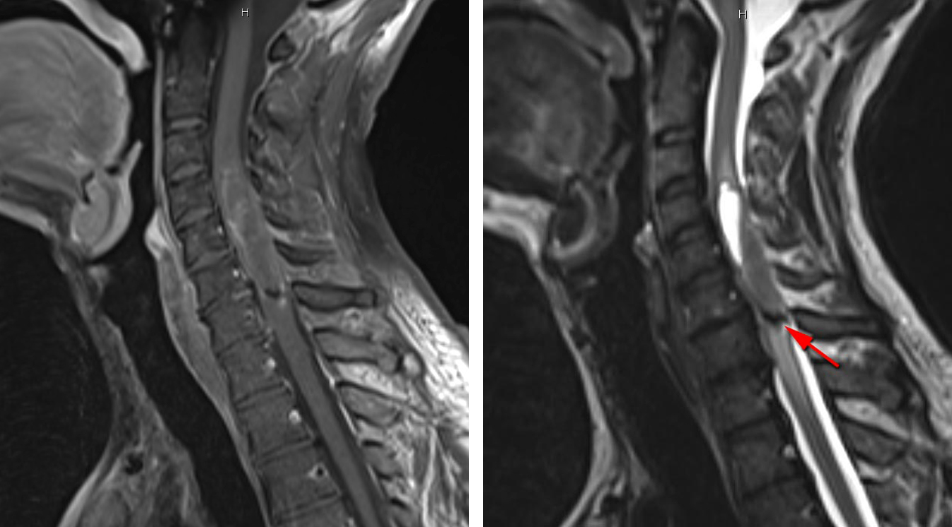 Figure 2: A cervical ependymoma with minimal enhancement (left image) associated with a small nidus of hemorrhage along its lower pole (red arrow, right image).