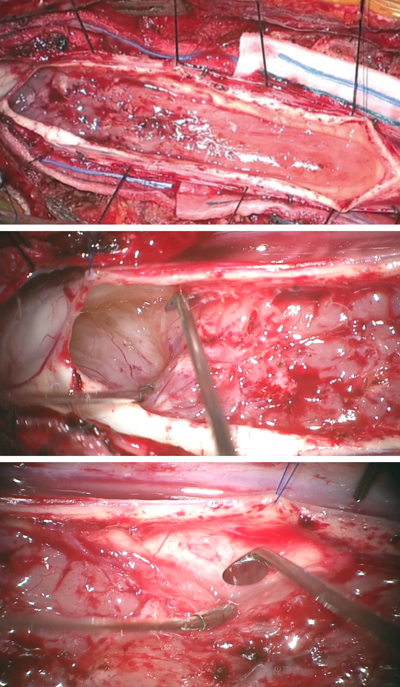 Figure 9: Pial retraction using 6.0 sutures mobilizes the pia mater, increases surgical exposure, and minimizes repetitive cord manipulation (top image). The cyst at the superior pole of the tumor facilitates the initial stages of dissection (middle image). An angled dissector mobilizes the centrally debulked tumor away from the cord (bottom image).