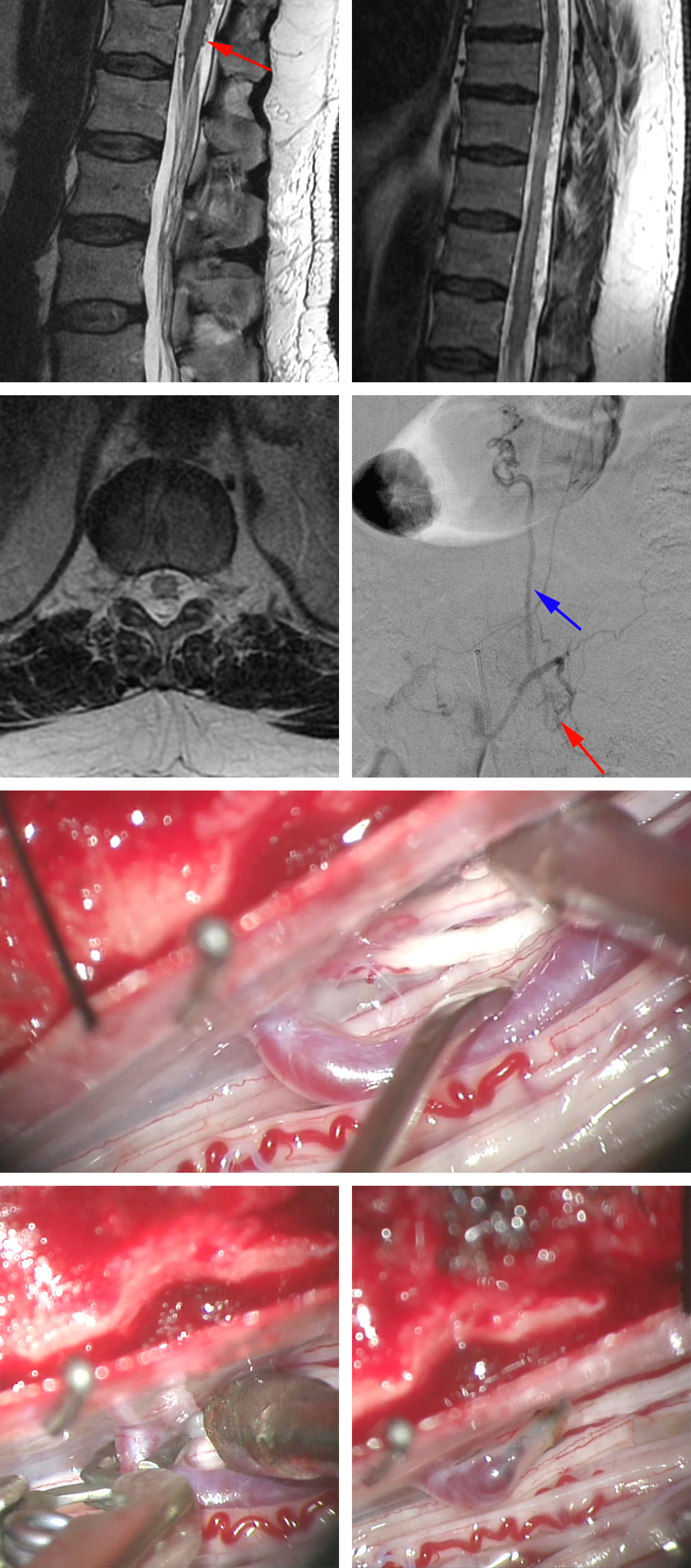 Figure 3: A 52-year-old man presented with a brief episode of paraparesis and underwent MR imaging. The initial lumbar MR demonstrated no remarkable findings except a questionable increase in the extent of vascularity along the dorsal conus medullaris (left upper image, arrow). Thoracic imaging disclosed additional hypervascularity within the dorsal intradural space (right upper image). Catheter angiography identified an L1 dAVF with a large midline arterialized vein on the dorsal surface of the cord (second row of images; the red arrow demonstrates the fistula and the blue arrow shows the arterialized vein on the cord). Intraoperative exploration identified the fistulous vein on the dorsal surface of the L1 nerve root (third row of images; the root is at the tip of the suction device). Intraoperative disconnection was performed following temporary clip ligation and coagulation of the vein (bottom row of images). The clip was removed to allow for watertight closure of the dura.