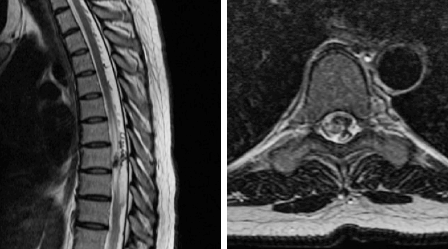 Figure 2: A 48-year-old woman presented with progressive left-sided weakness and numbness. Thoracic MR imaging disclosed hypervascularity (serpiginous flow voids) within the dorsal intradural space together with large intraparenchymal flow voids at T8-9, suggestive of a nidus. Spinal cord edema (left image) was noted. On the axial image (right image), this spinal AVM appeared to have both intramedullary and extramedullary components on the left side.