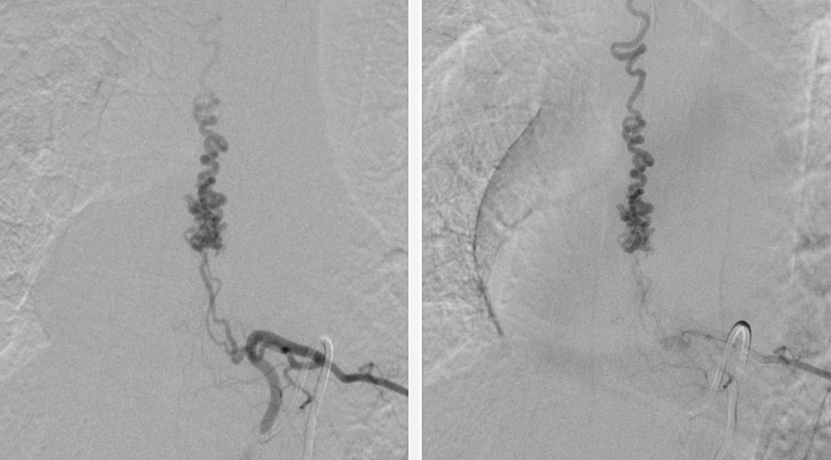 Figure 3: Selective catheter angiography (early and late arterial phases) identified a compact glomus malformation, which was fed by radiculomedullary arteries near T9.