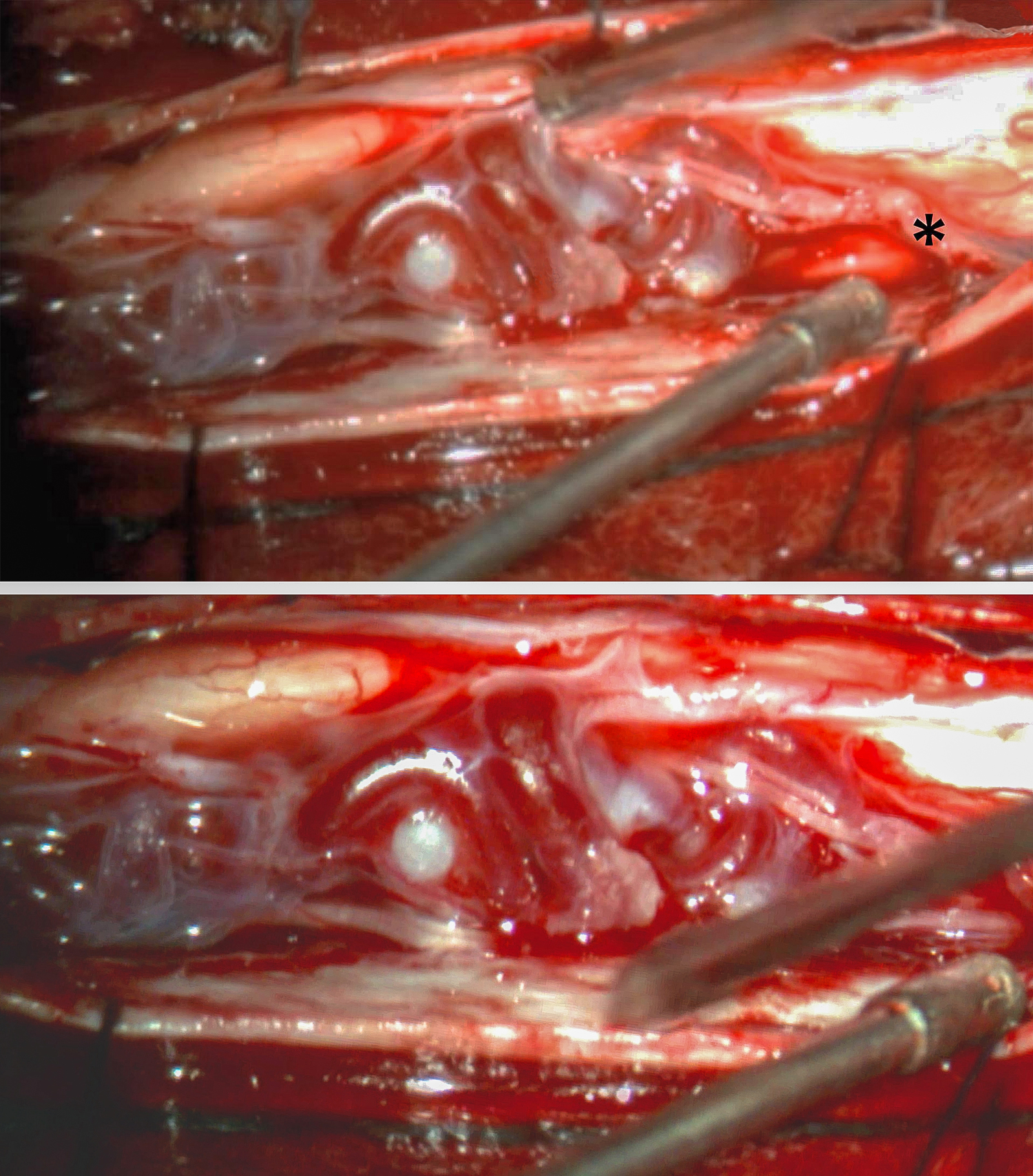 Figure 4: The initial inspection after arachnoid opening reveals a laterally positioned glomus malformation. A major feeder was readily identified along the inferior aspect of the malformation (upper photo, asterisk). See Figures 2 and 3 for preoperative images. A more magnified view of the exophytic part of the malformation is also shown (lower photo).