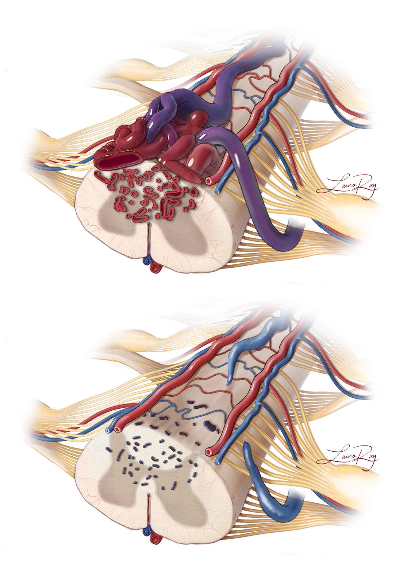 Figure 7: In this schematic representation, the pial resection technique is further illustrated. The nidus is embedded in the cord parenchyma and extrapial space (top image). After resecting the extrapial portion via epipial dissection, the remaining parenchymal component is devascularized and obliterated (bottom image).