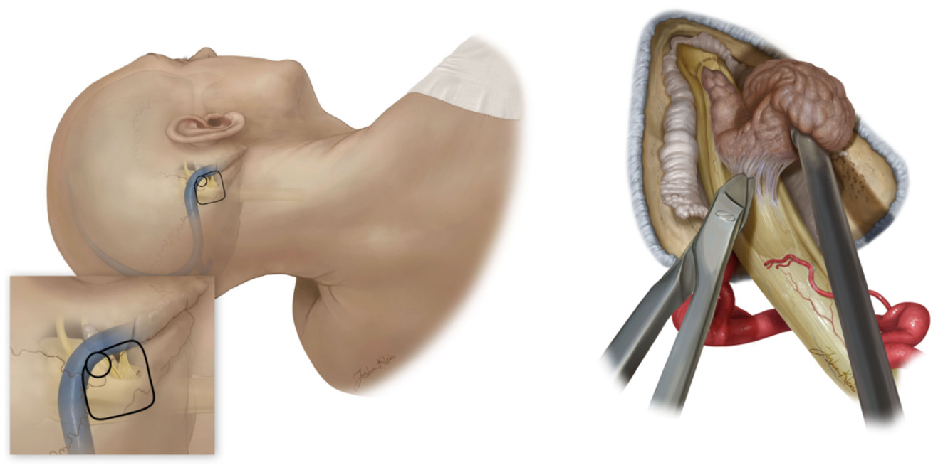 Figure 2: Removal of an acoustic neuroma via the retrosigmoid approach involves making a cut behind the ear (left) and carefully peeling the tumor off of the vestibulocochlear nerve (right).