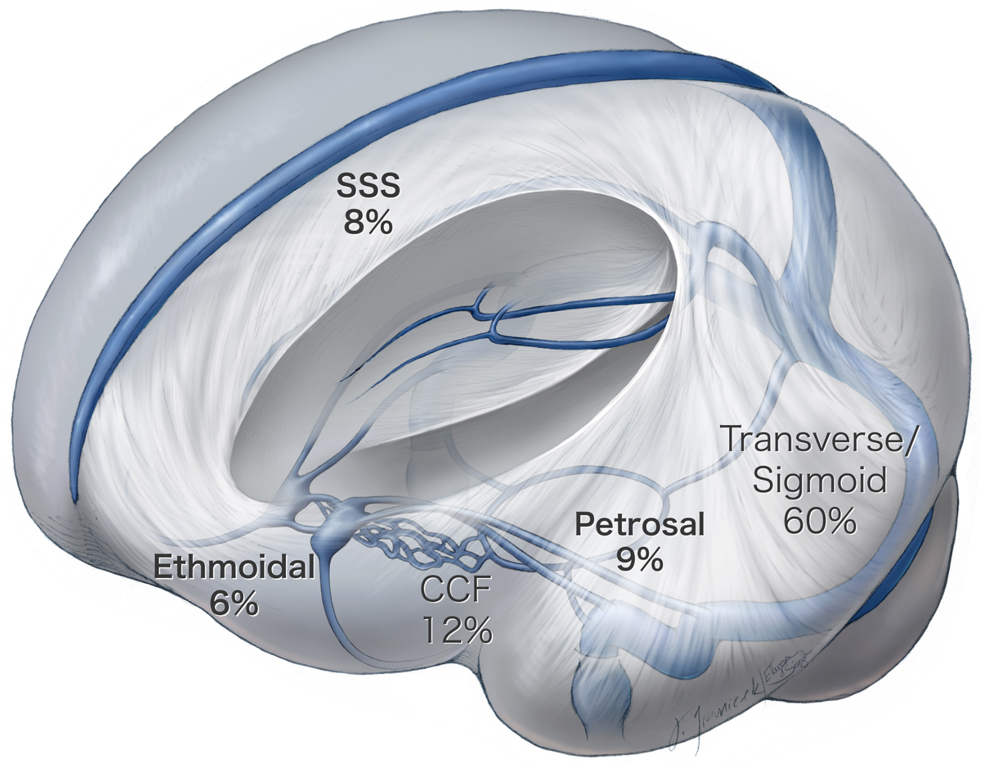 Figure 1. The location and incidence of the most common types of intracranial dAVFs. Depicted in blue are the brain's venous sinuses, which drain blood back to the heart.
