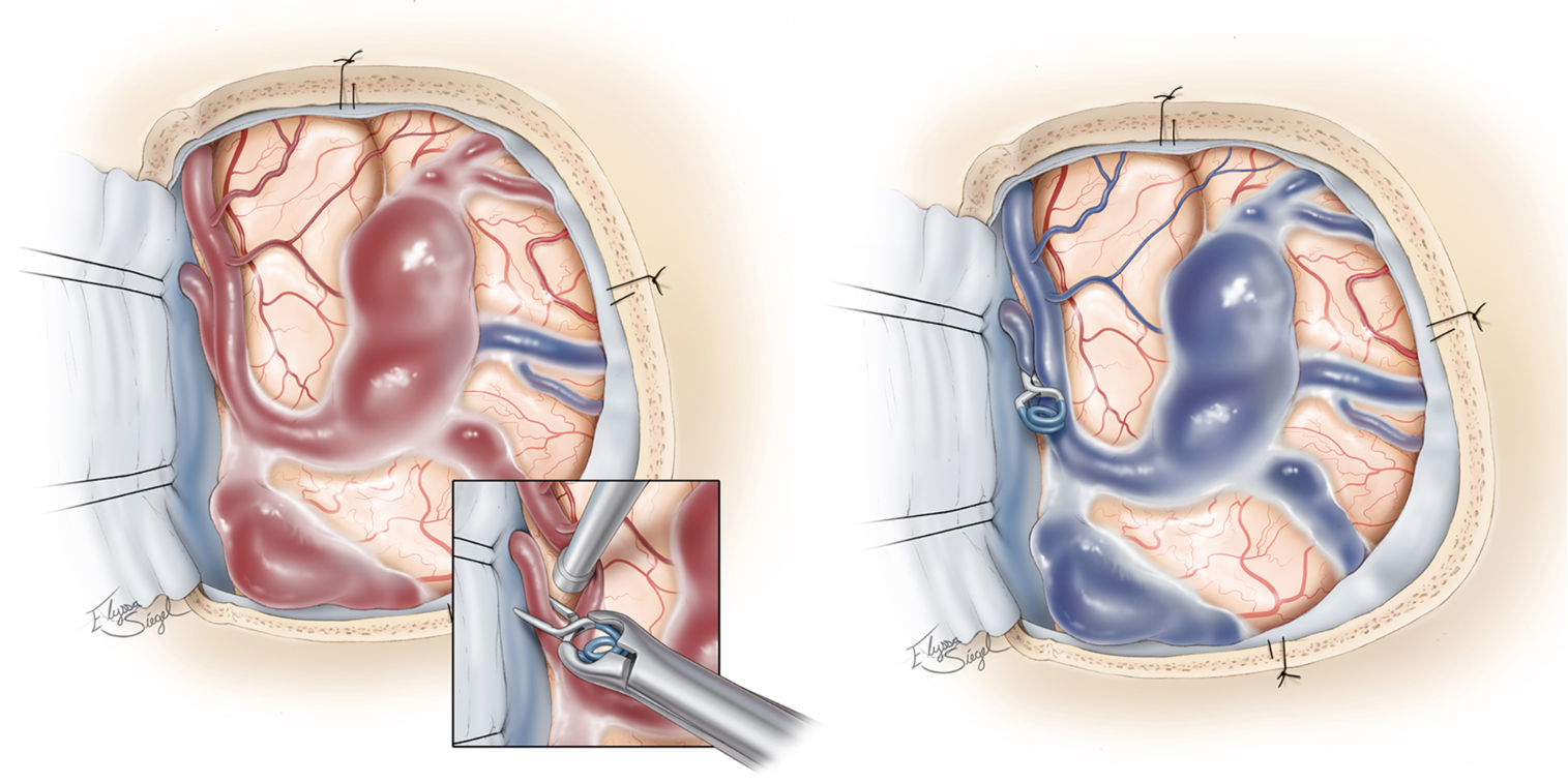 Figure 3. Clipping of a vein of a fistula at the site of its abnormal connection to an artery (left) and resulting occlusion of the fistula and return of normal venous blood flow (in blue) (right).