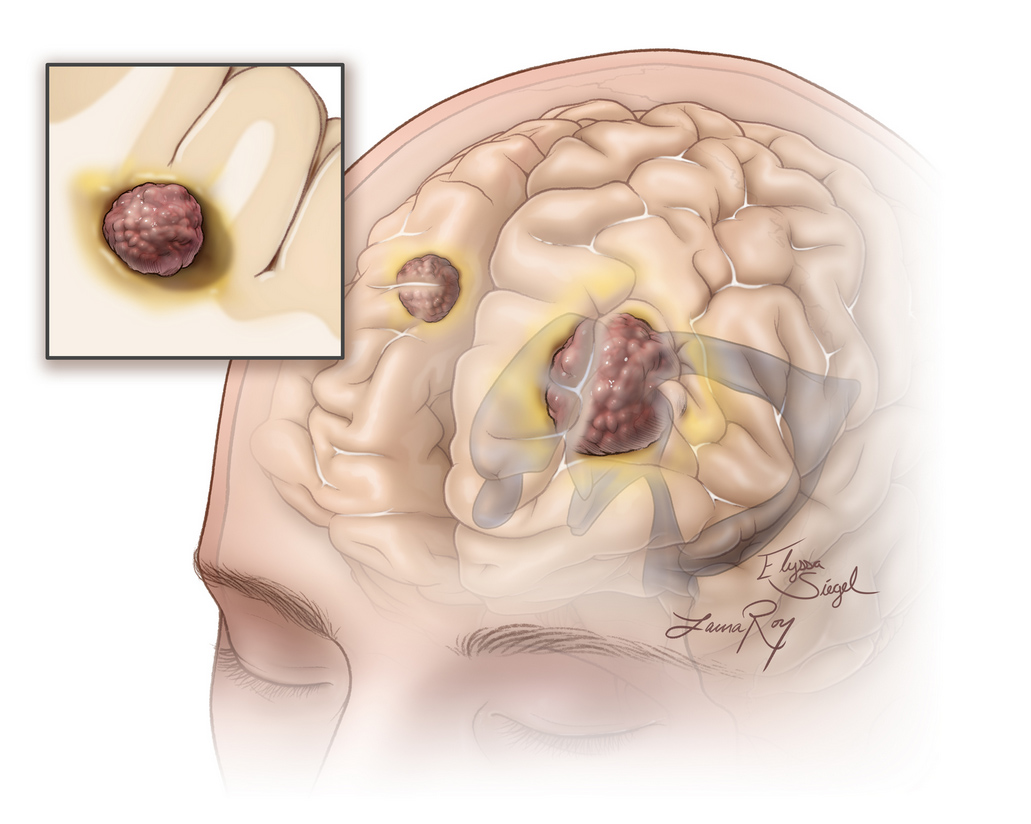 Figure 1. Multiple brain metastatic tumors (dark brown) are illustrated.