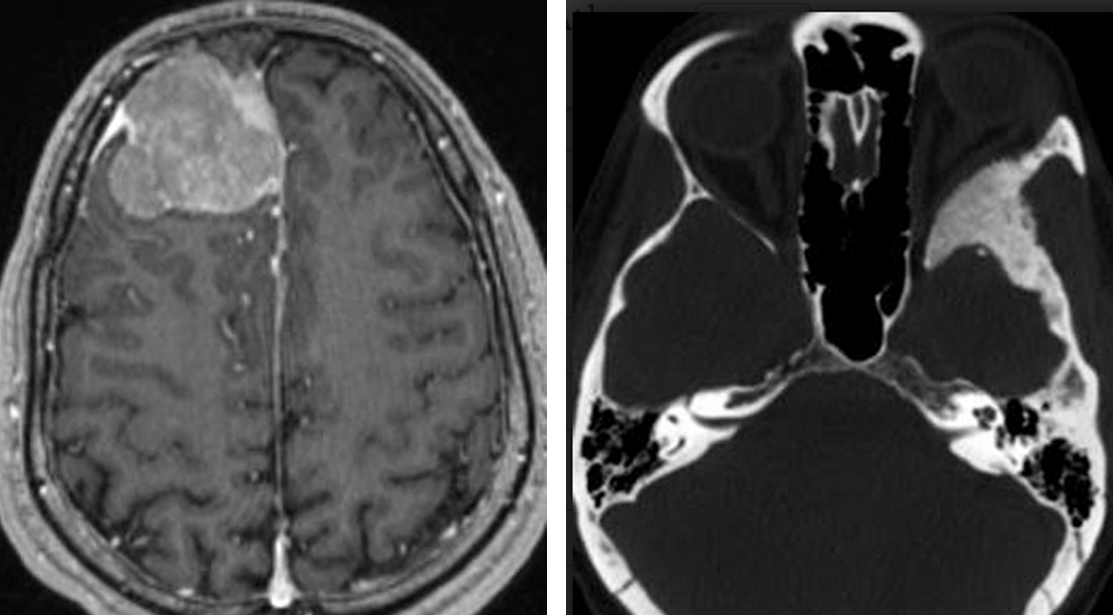 Figure 2. MRI (left) and CT imaging (right) of 2 different patients with a meningioma. MRI offers better detail of soft tissues in the brain, whereas CT imaging is preferred for assessing bony structures.