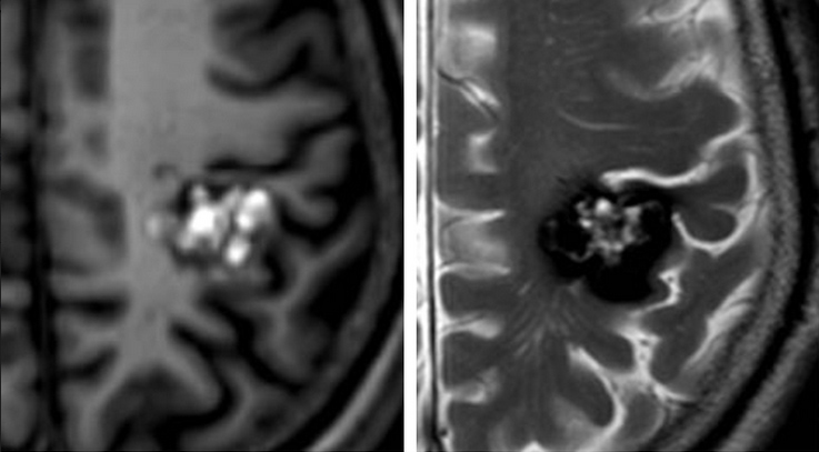 """Figure 2. MRI of a cavernous malformation, often described as a """"popcorn"""" lesion on imaging."""