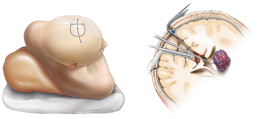 Figure 3. Surgical removal of a cavernous malformation in a minimally invasive fashion.